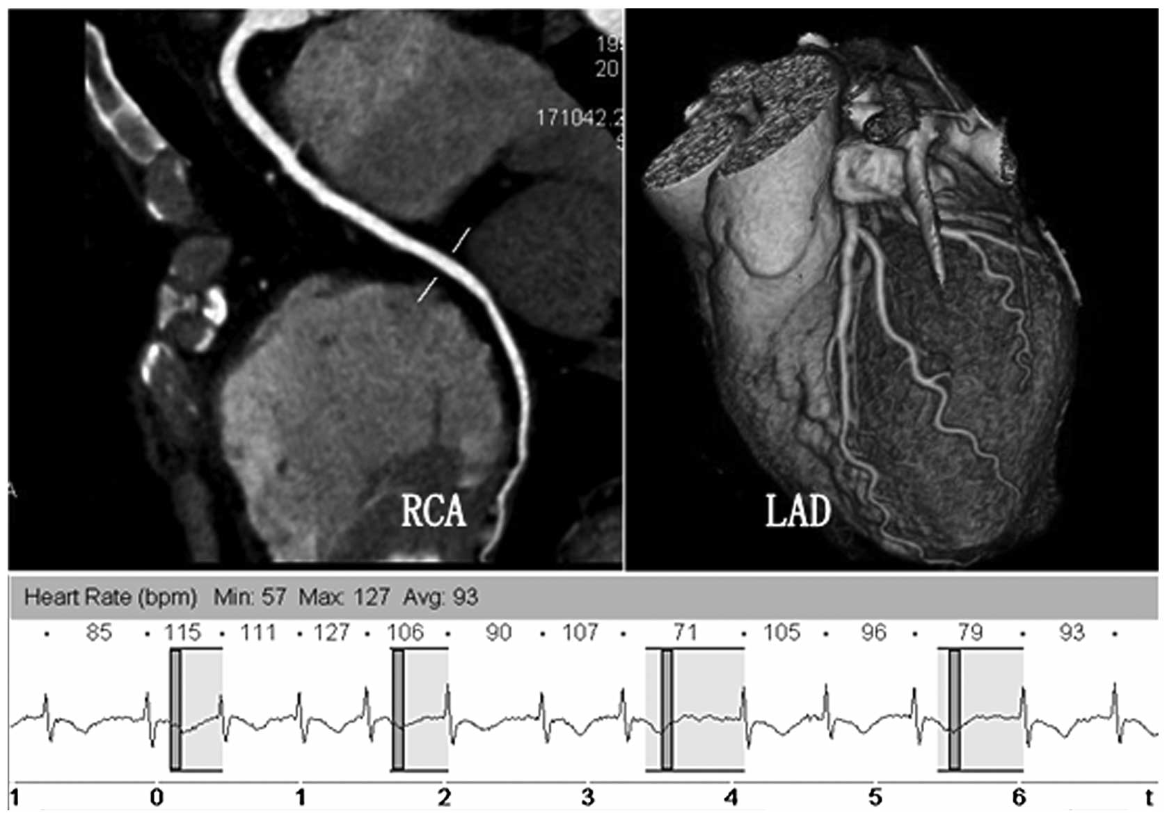 Adaptive Prospective Ecg Triggered Sequence Coronary Angiography In