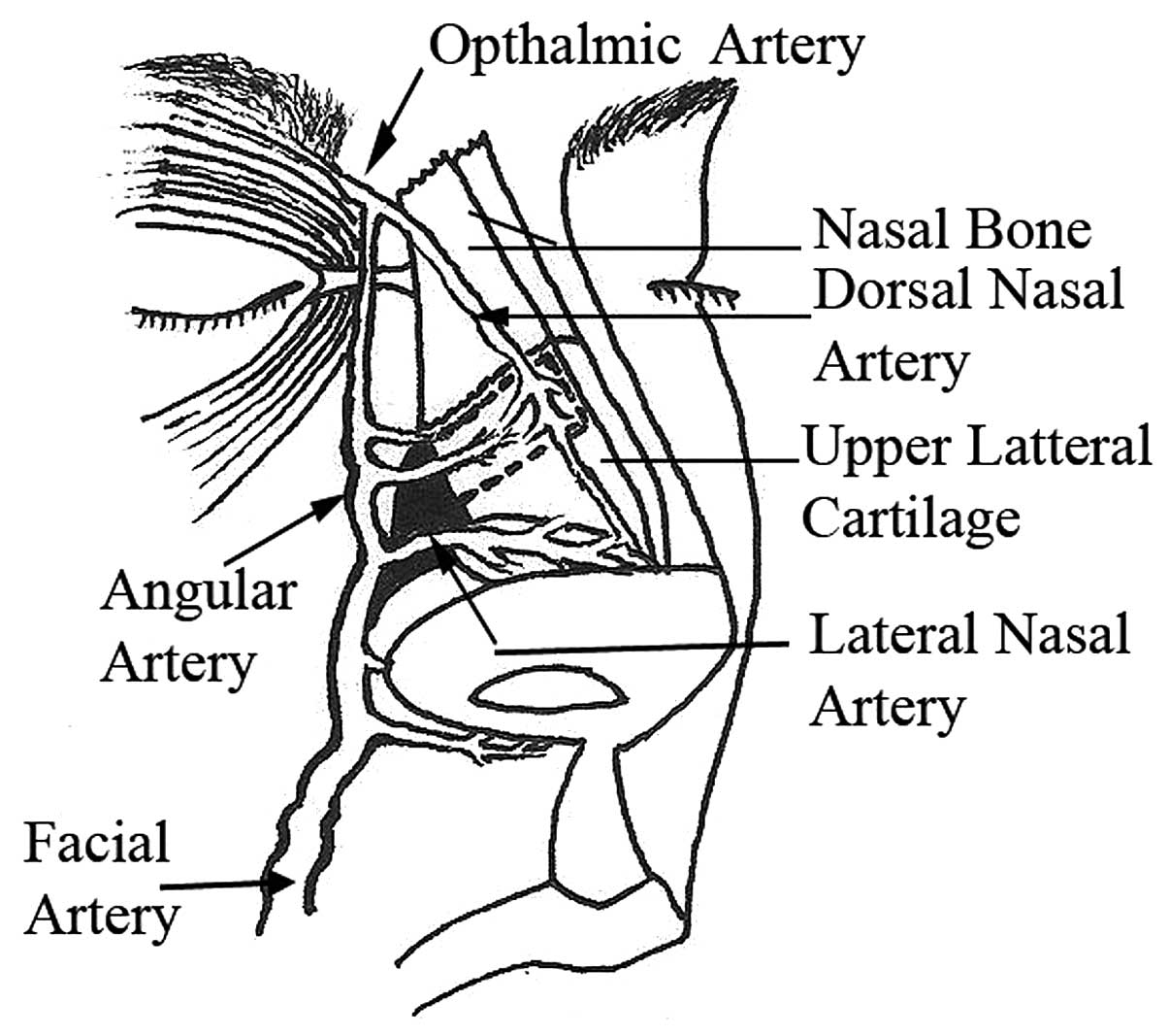 Angular vessels as a new vascular pedicle of an island ...  Angular vessels...
