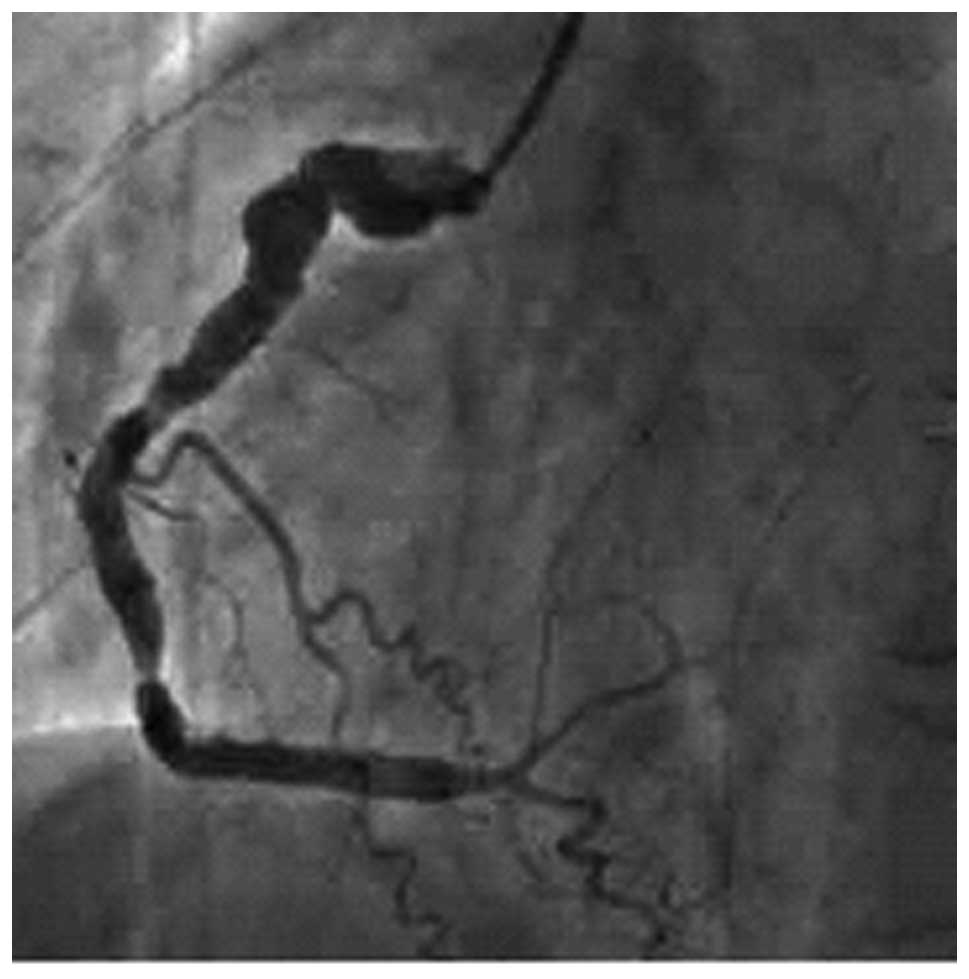 how to read a coronary angiography report