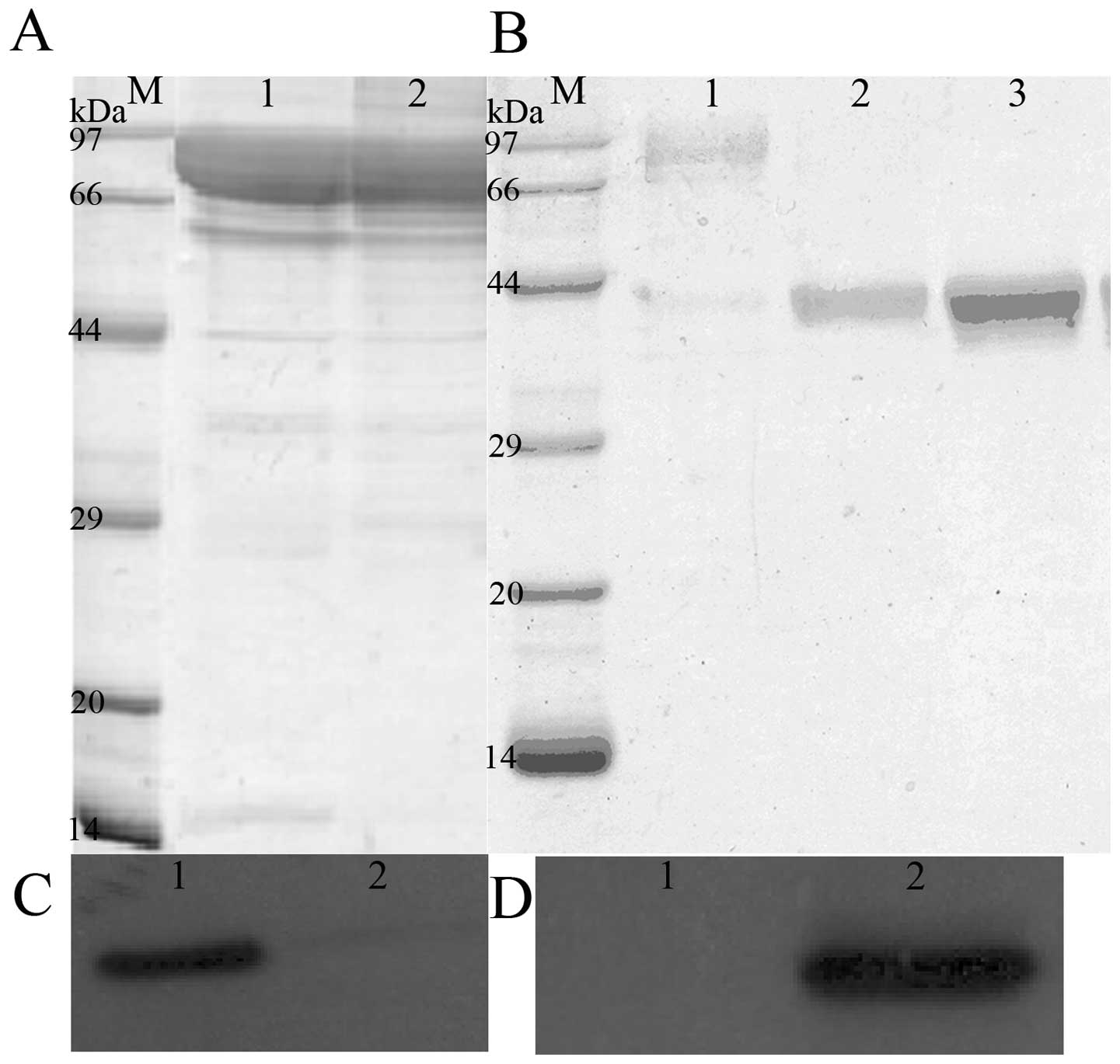 Expression And Purification Of Recombinant Proteins Based