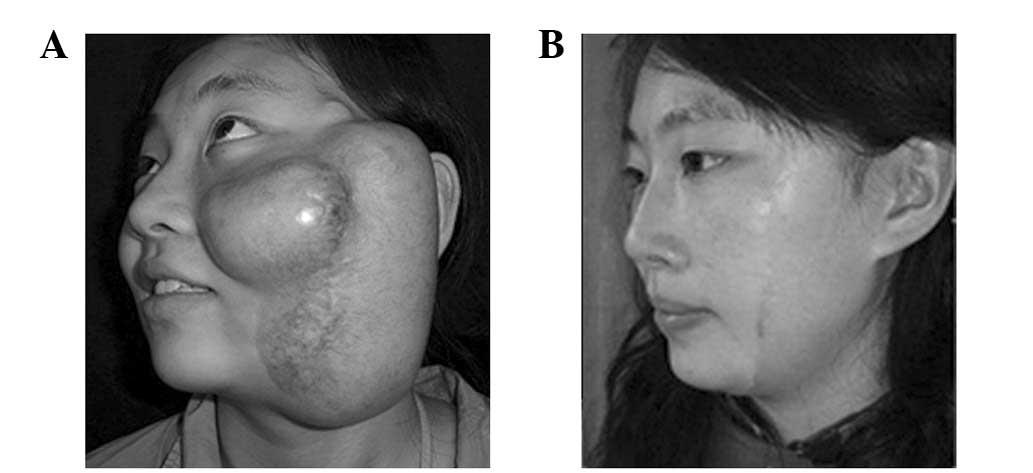 Facial recognition demo