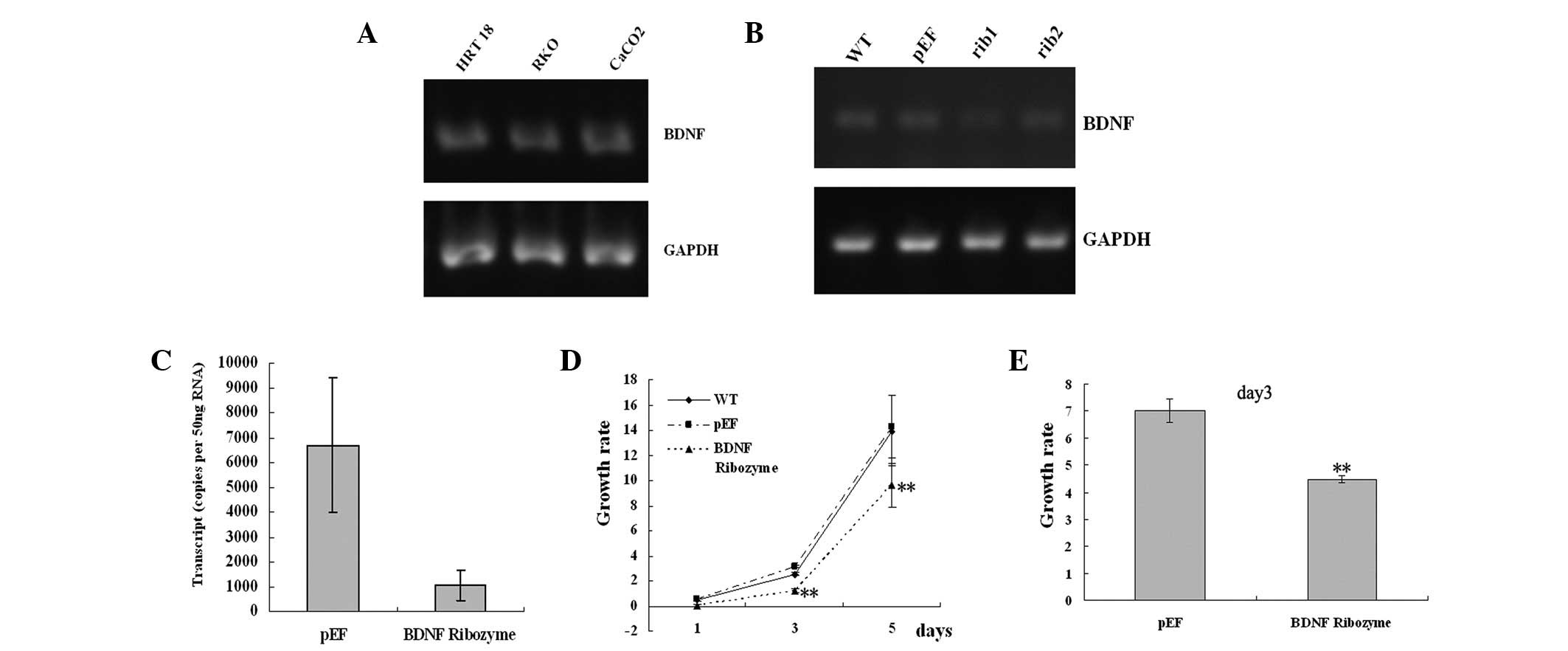 Biological Influence Of Brain Derived Neurotrophic Factor Bdnf On Colon Cancer Cells