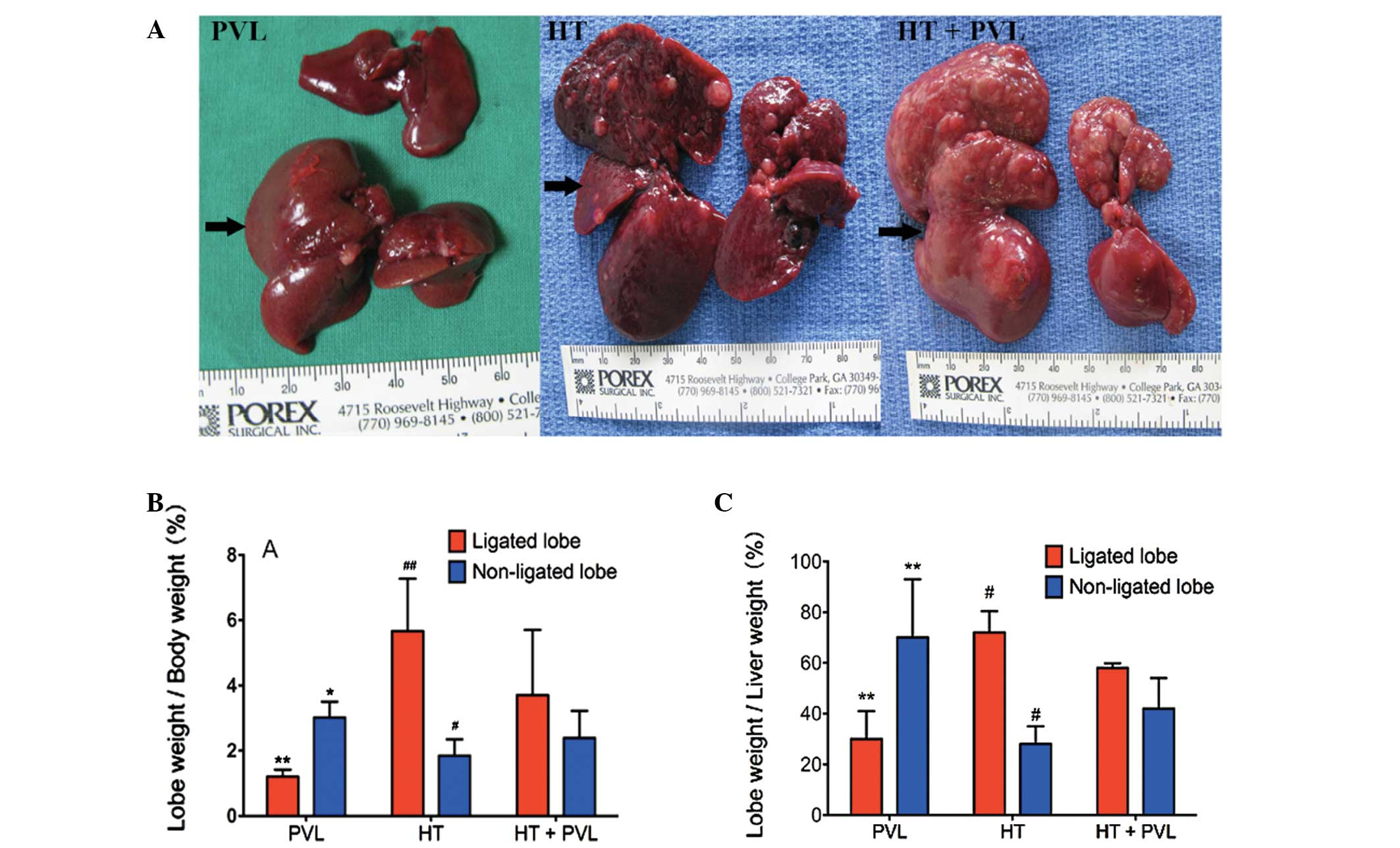 Effect Of Portal Vein Ligation On Tumor Growth And Liver