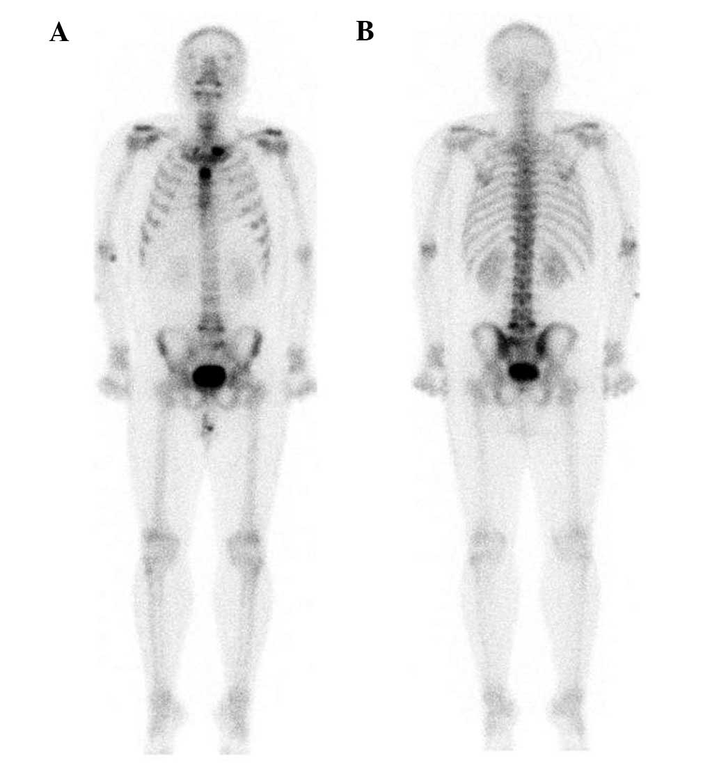 Diagnosis And Treatment Of Sapho Syndrome A Case Report