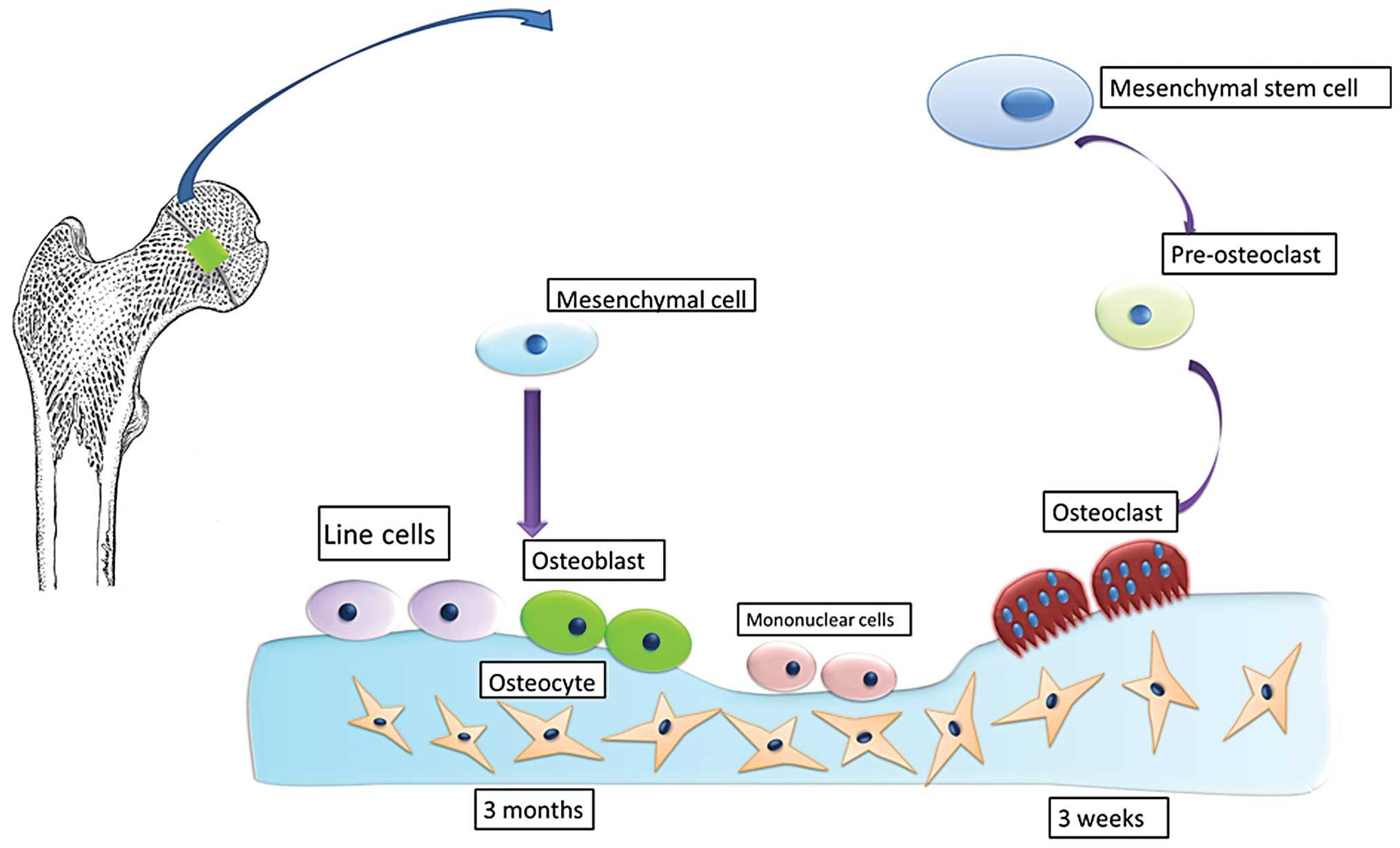steroid induced gynecomastia
