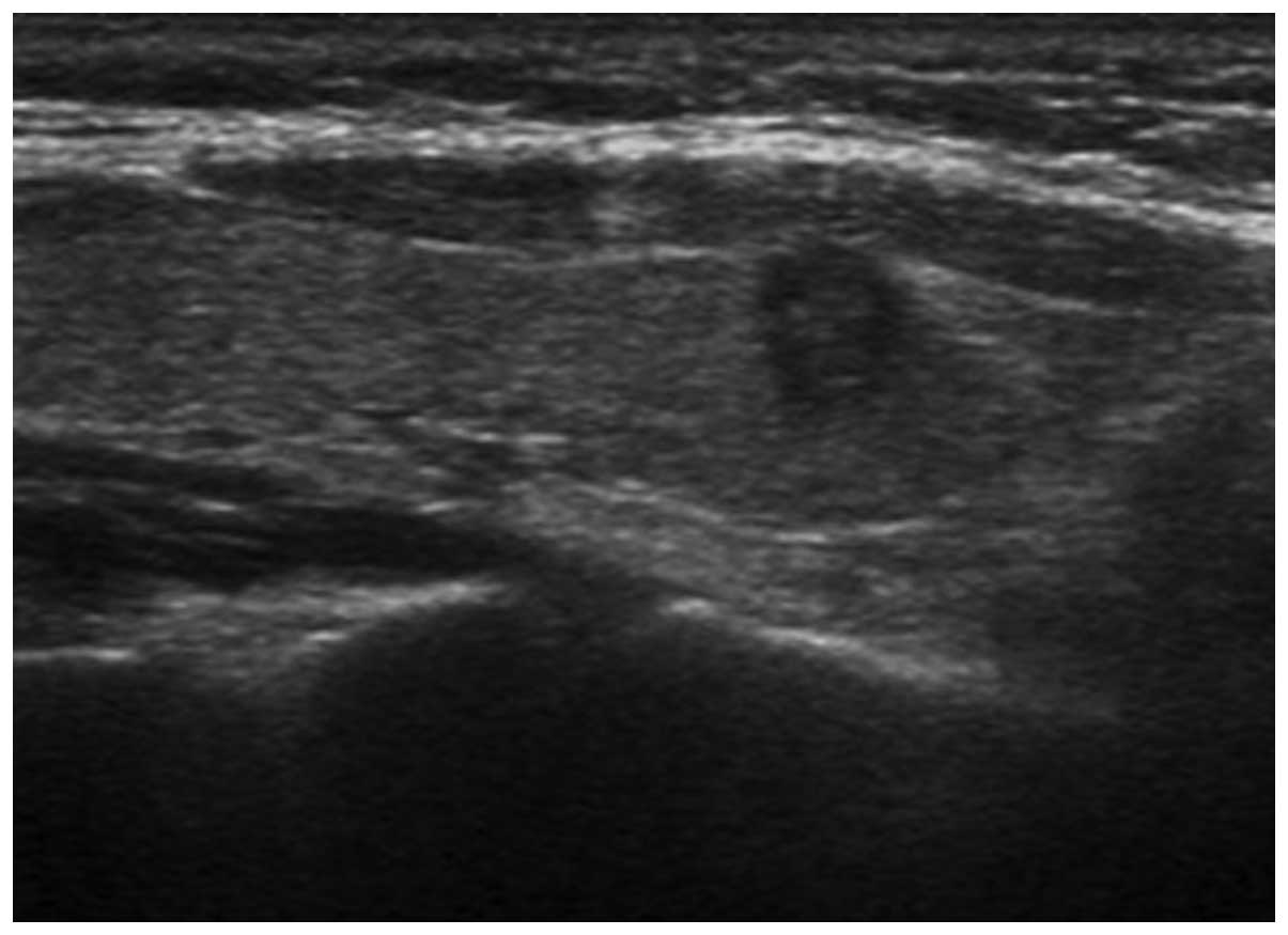 Ultrasonic Features Of Papillary Thyroid Microcarcinoma And Non Microcarcinoma