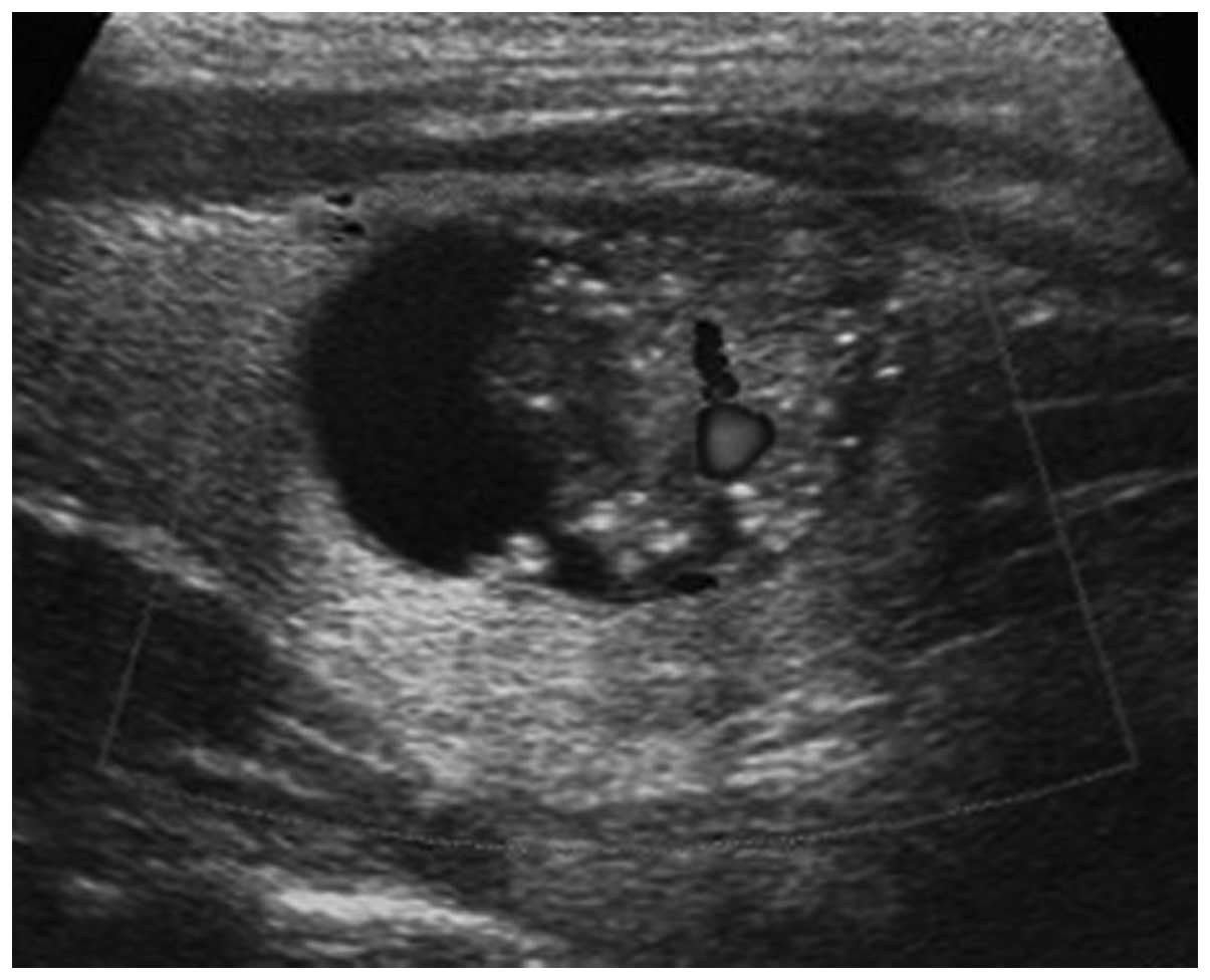 Ultrasonic Features Of Papillary Thyroid Microcarcinoma And Non