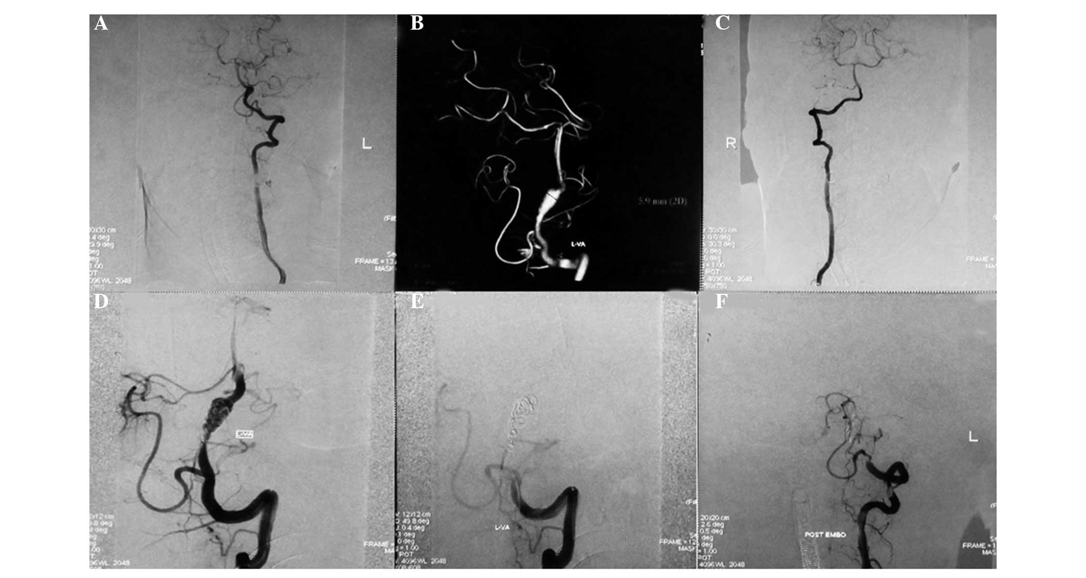 Endovascular Interventional Therapy And Classification Of Vertebral