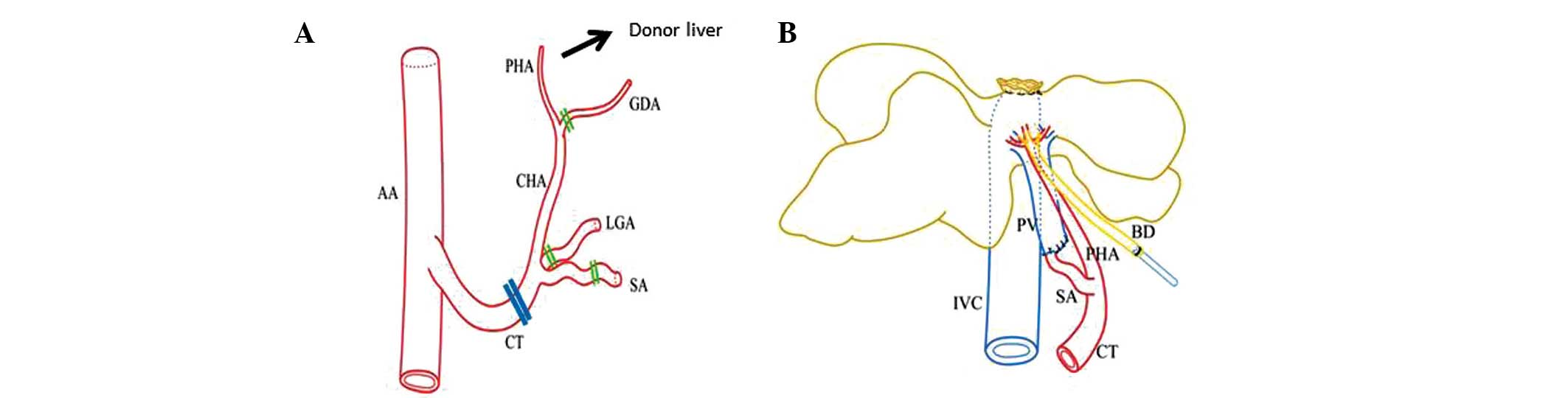 A New Rat Model Of Auxiliary Partial Heterotopic Liver
