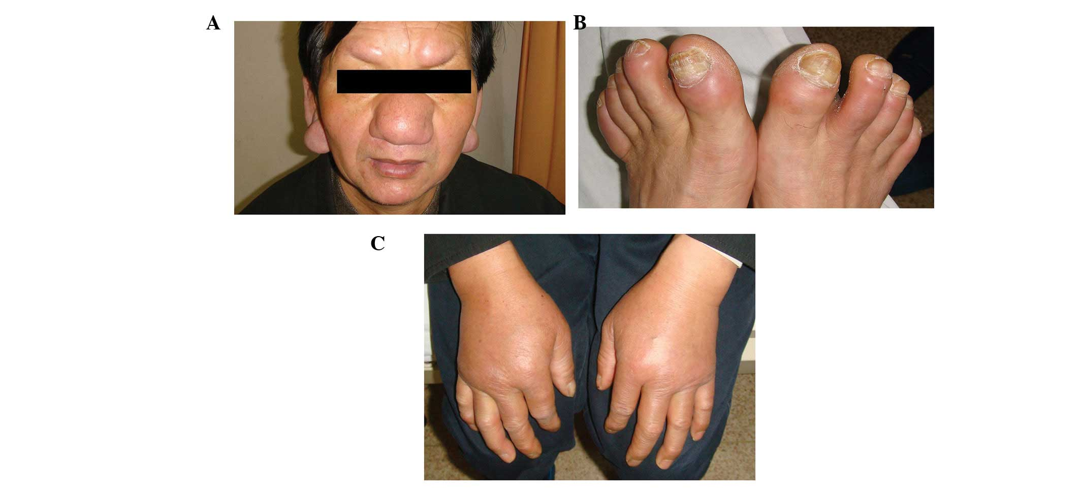 Cutaneous manifestations in a patient with chronic