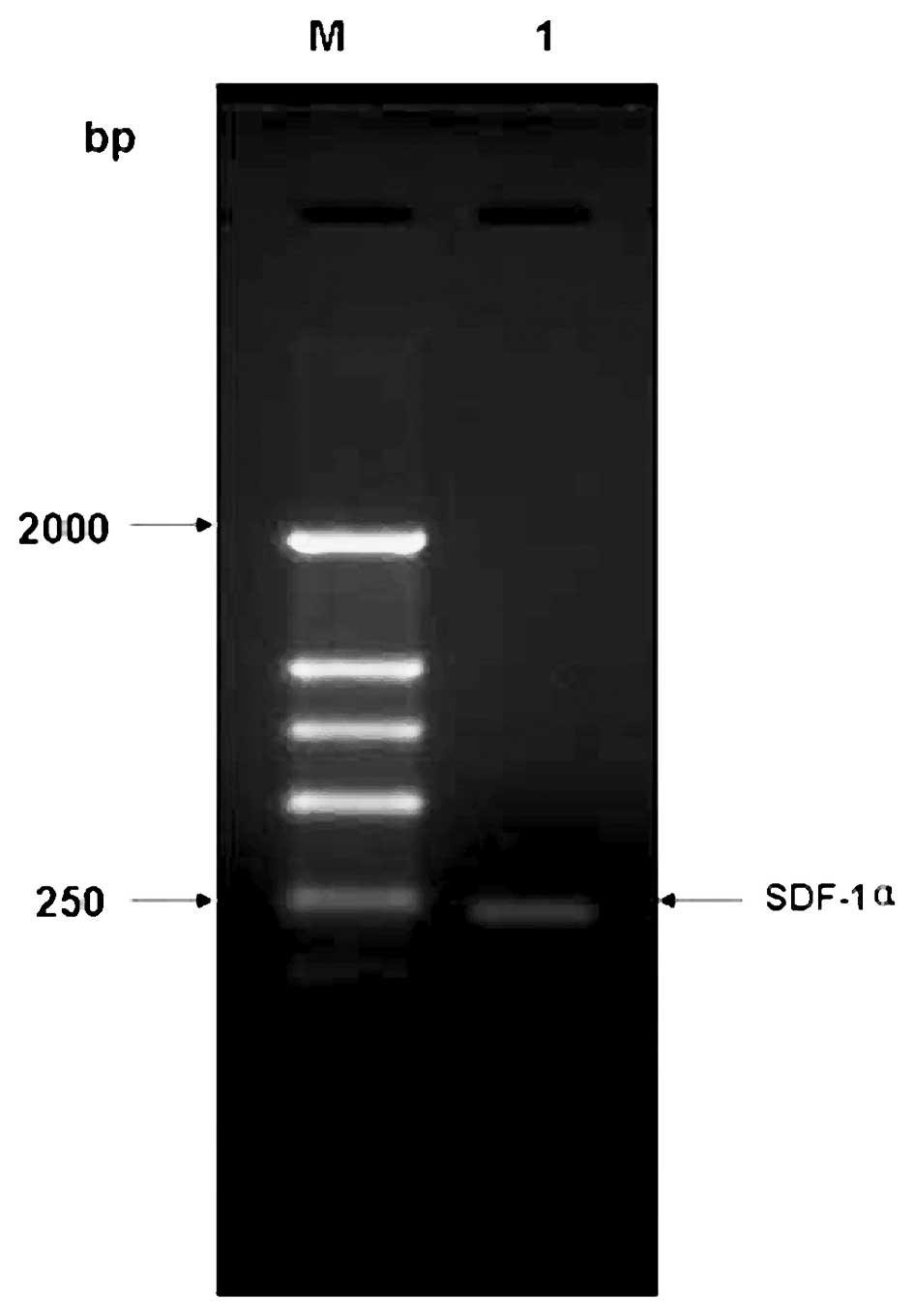 agarose gel electrophoresis dissertation format