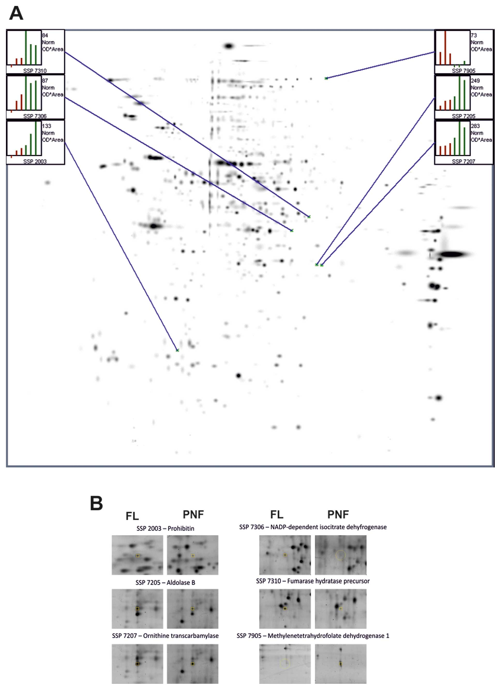 Application Of A Proteomic Approach To Identify Proteins Associated