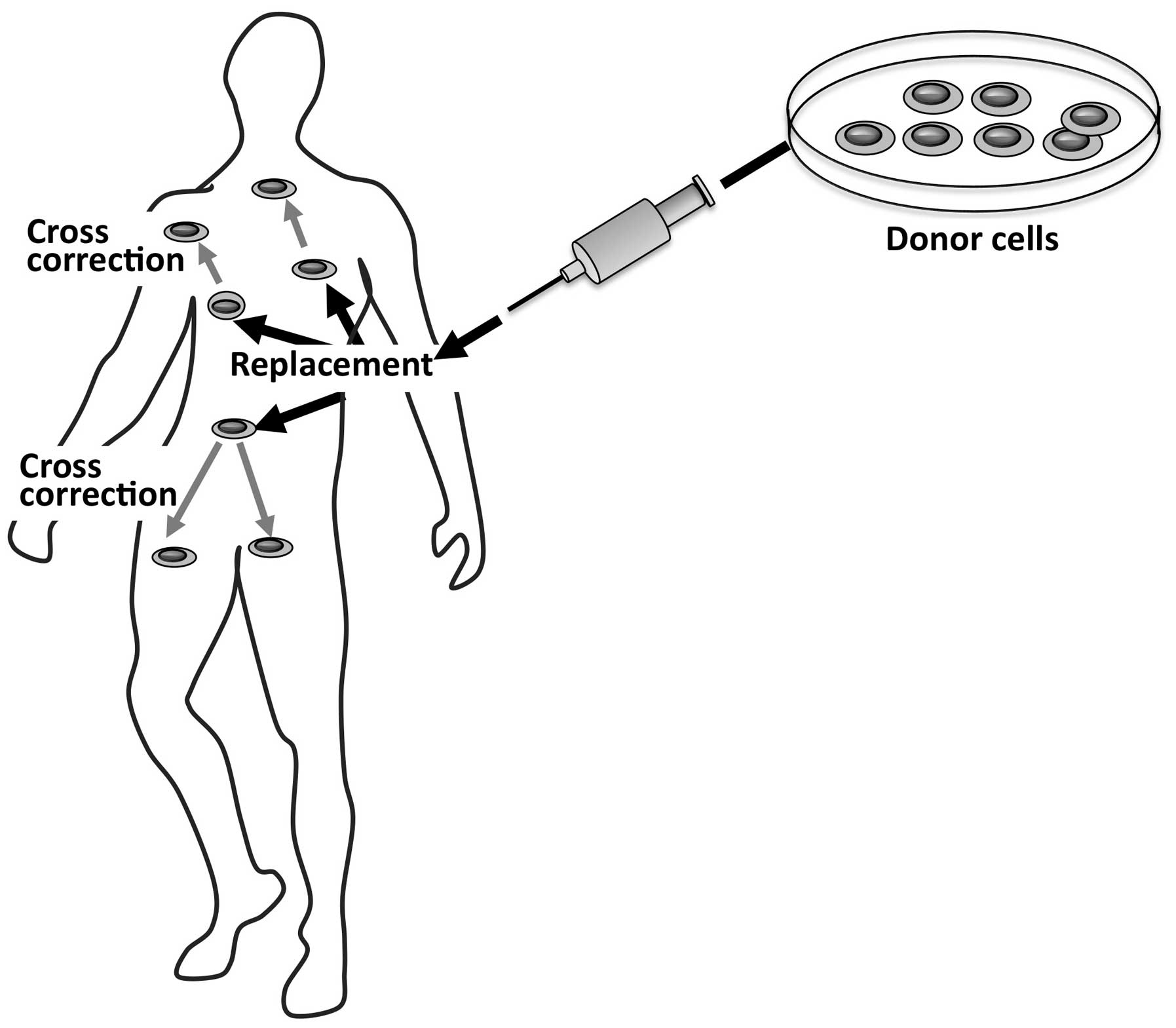 figure stem cell is based on the use of stem cells derived from a healthy donor as a therapeutic agent