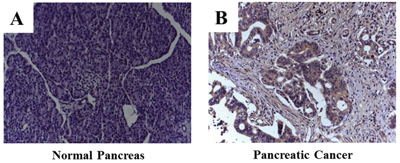 B7-H3 overexpression in pancreatic cancer promotes tumor
