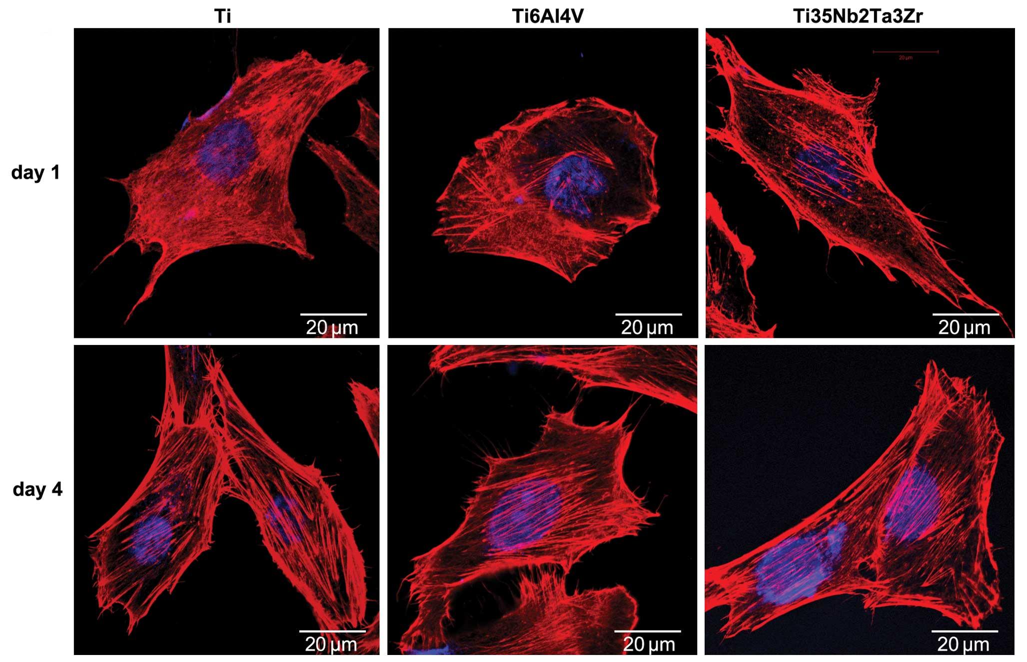 Human Osteoblasts (HOB)   PromoCell