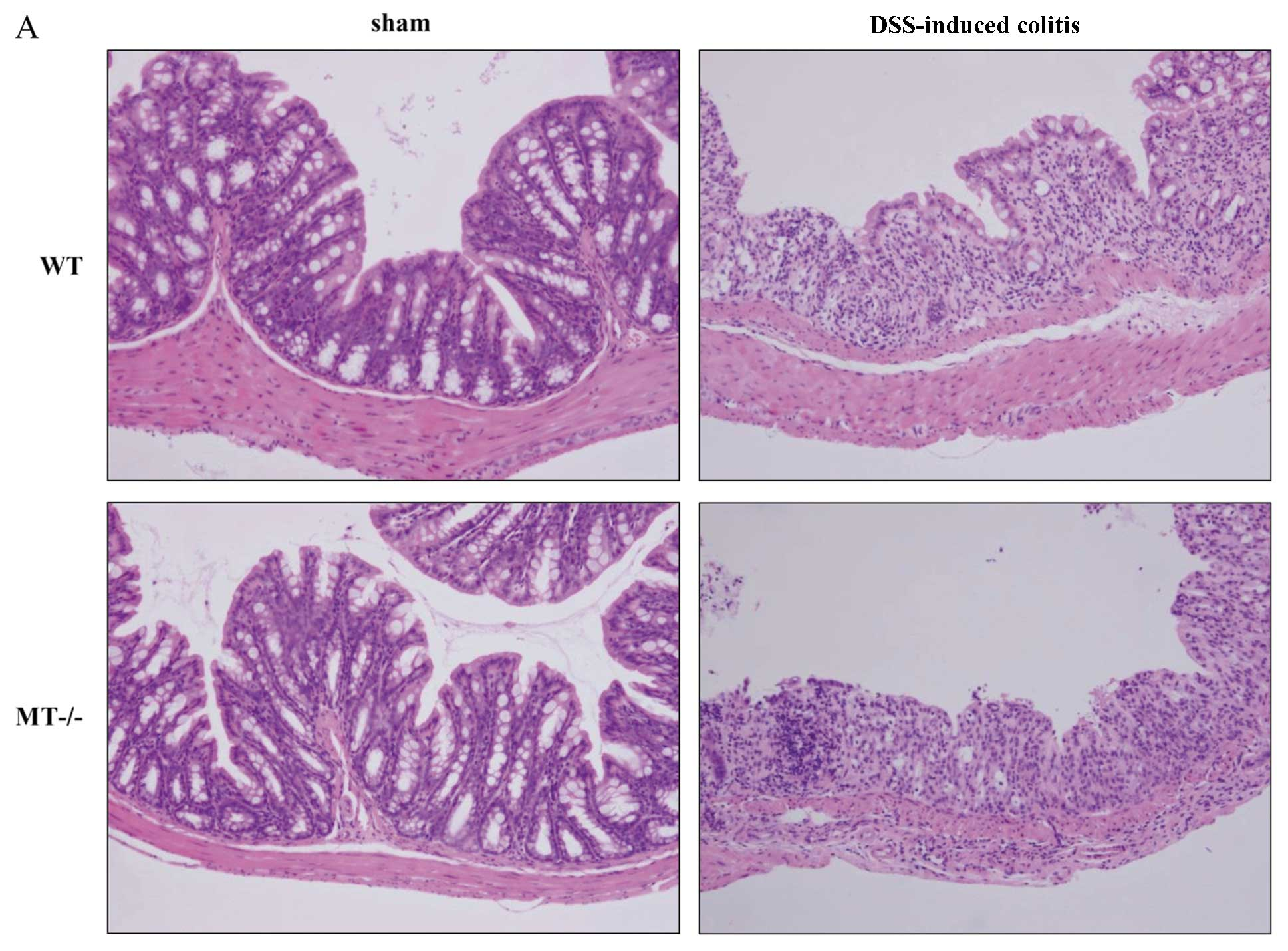 Role Of Metallothionein In Murine Experimental Colitis