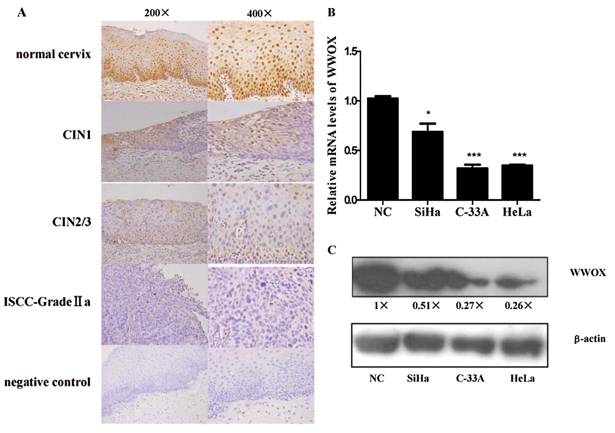 Wwox Induces Apoptosis And Inhibits Proliferation In Cervical Cancer