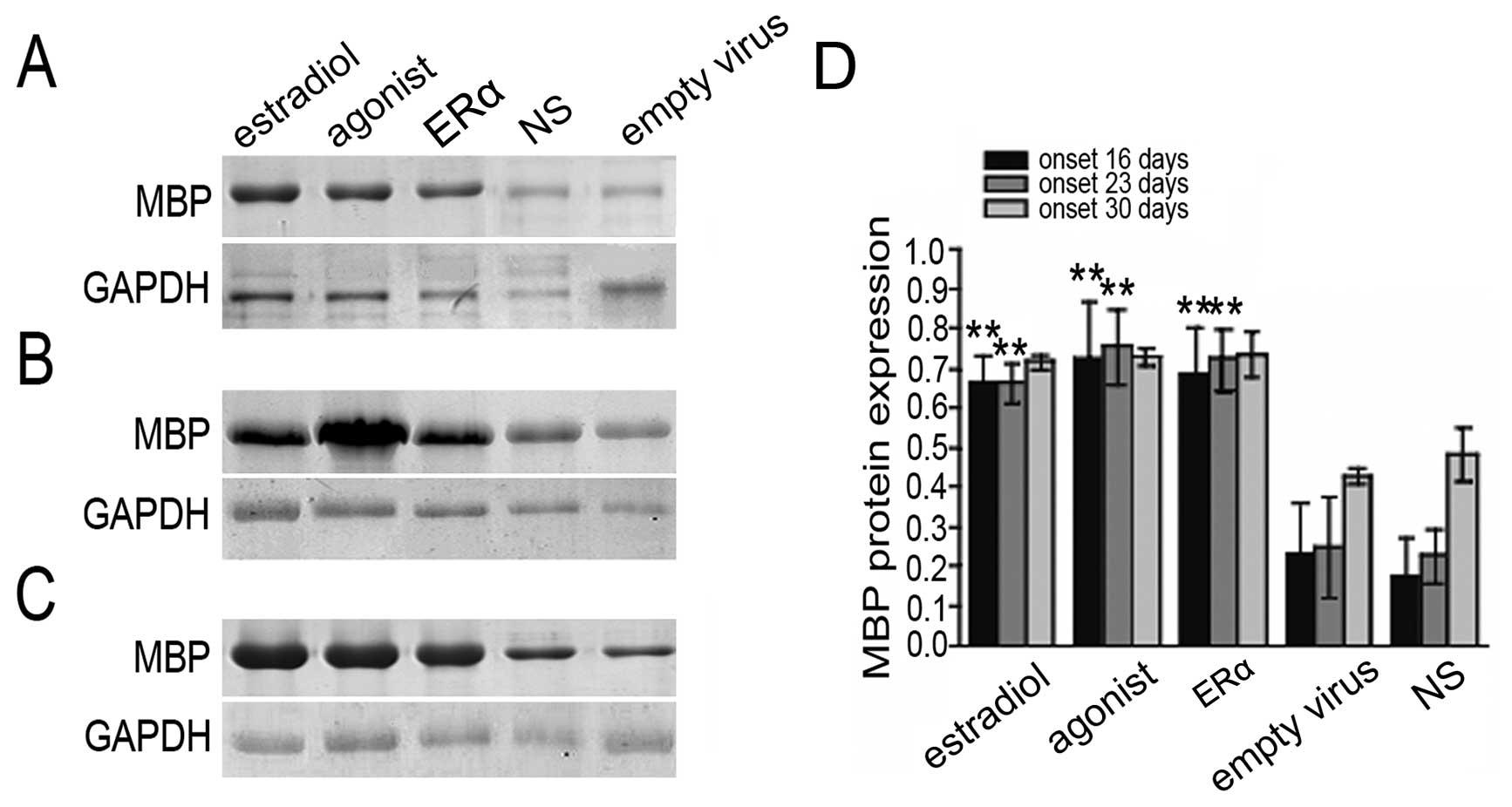 Lentivirus Mediated Estrogen Receptor Overexpression In