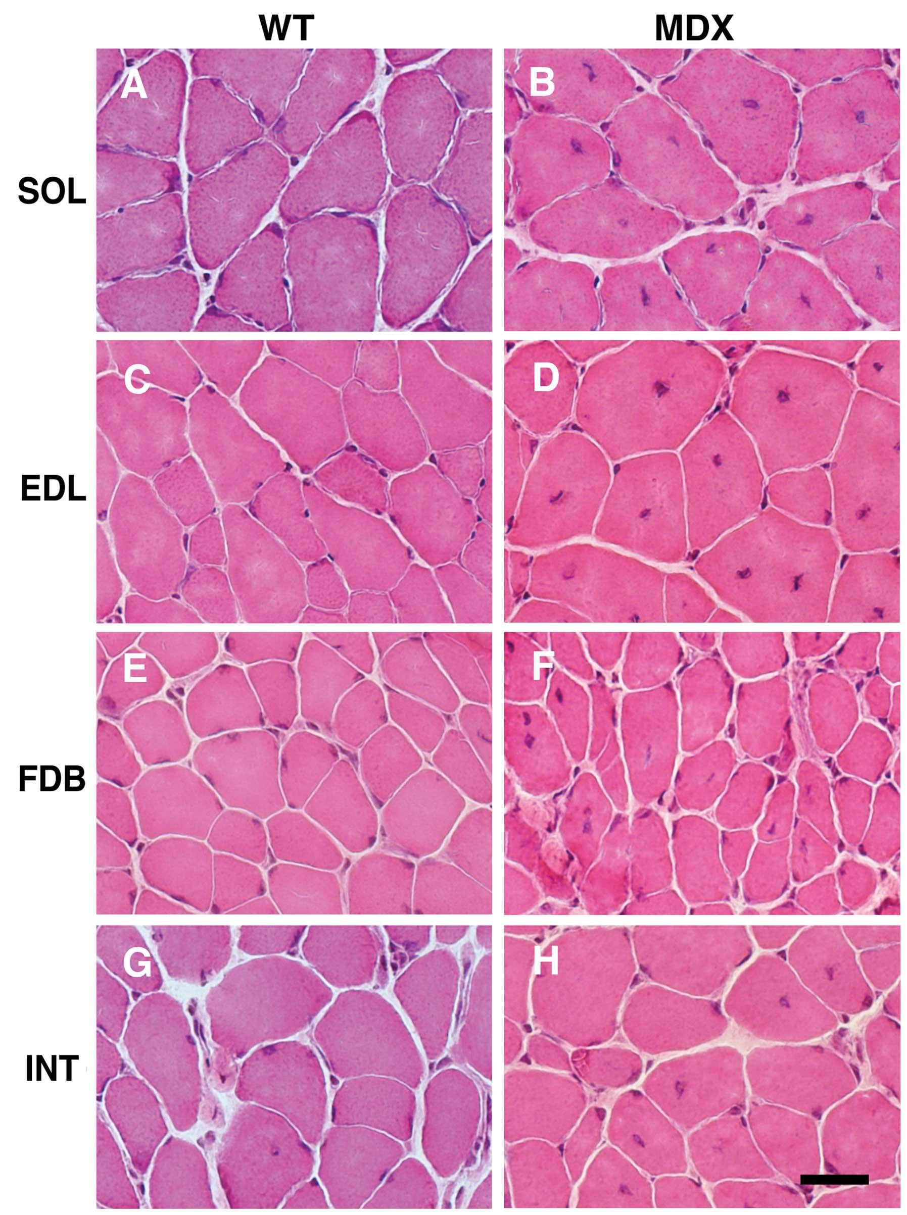 Comparative Proteomic Profiling Of Soleus Extensor
