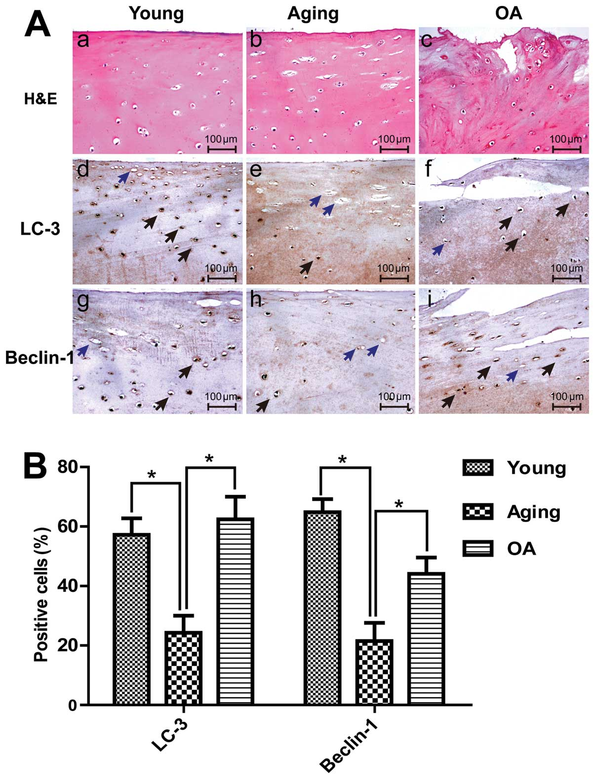 The dual role of autophagy in chondrocyte responses in the ...