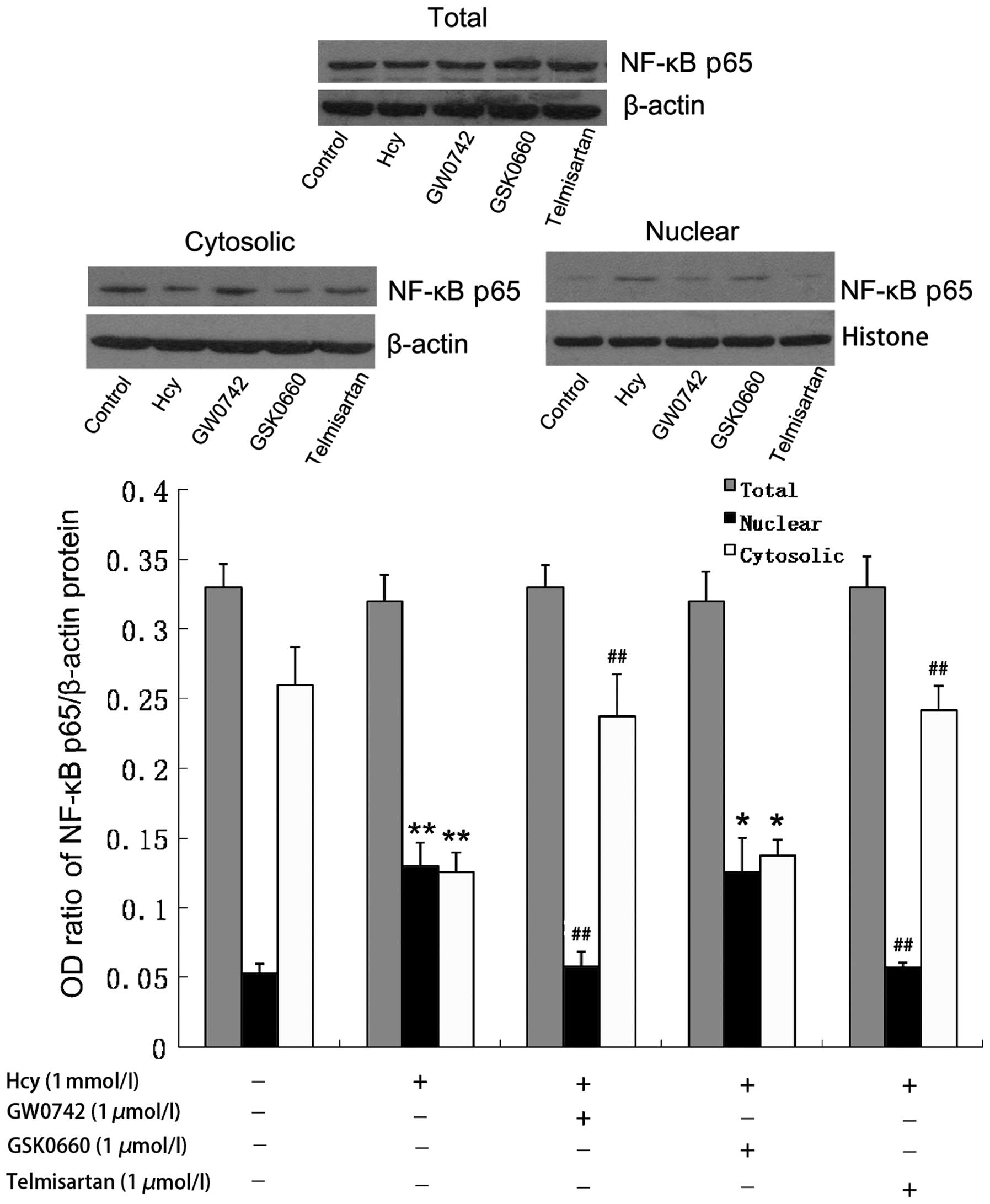 International Journal of Molecular Medicine Telmisartan inhibits the proinflammatory effects of homocysteine on human endothelial cells through activation of the peroxisome proliferator-activated receptor-δ pathway