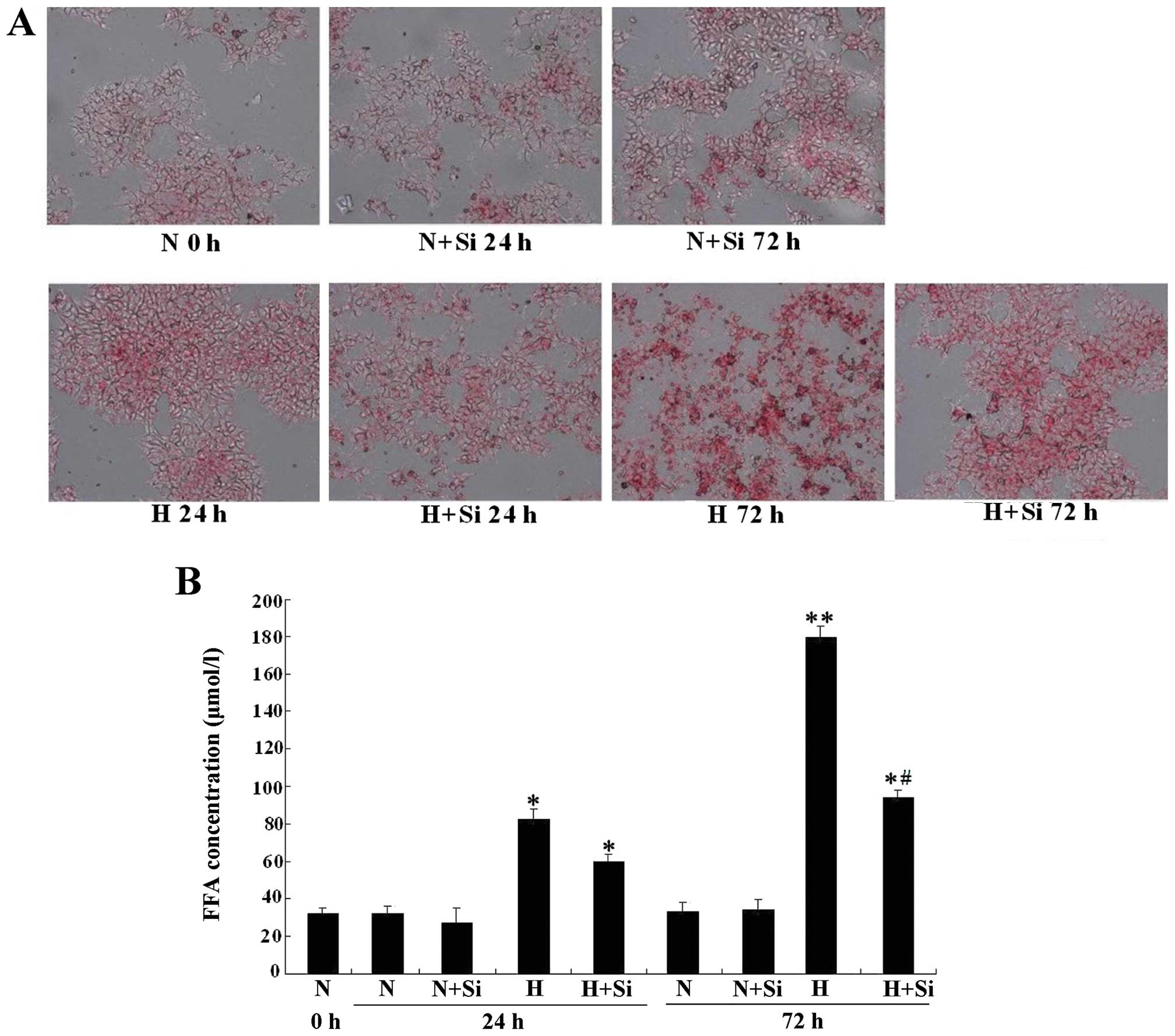 Silibinin Protects Cells From Glucotoxicity Through