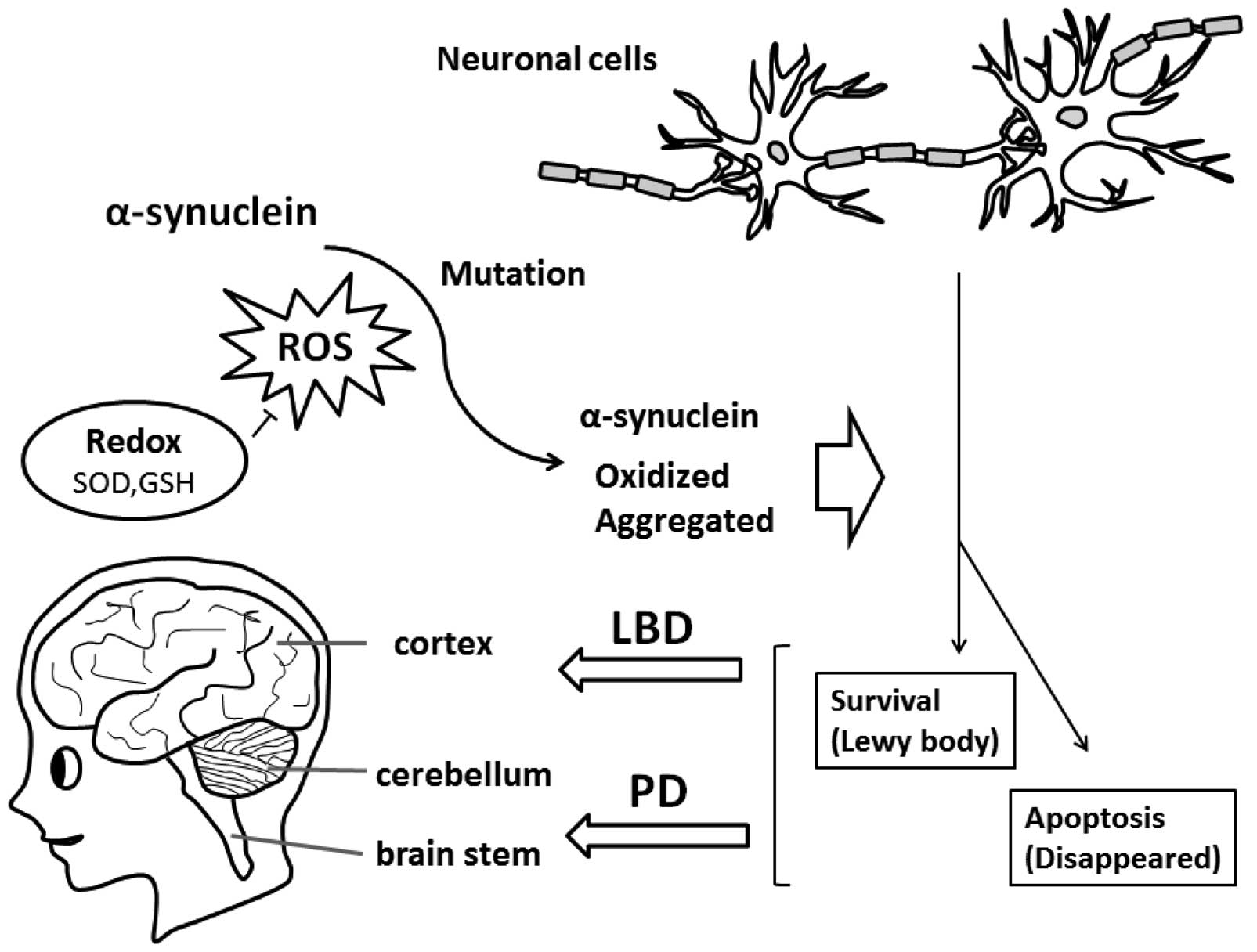 abnormality of �-synuclein may be a causative factor in the development of  lewy body dementia (lbd) and parkinson's disease (pd)
