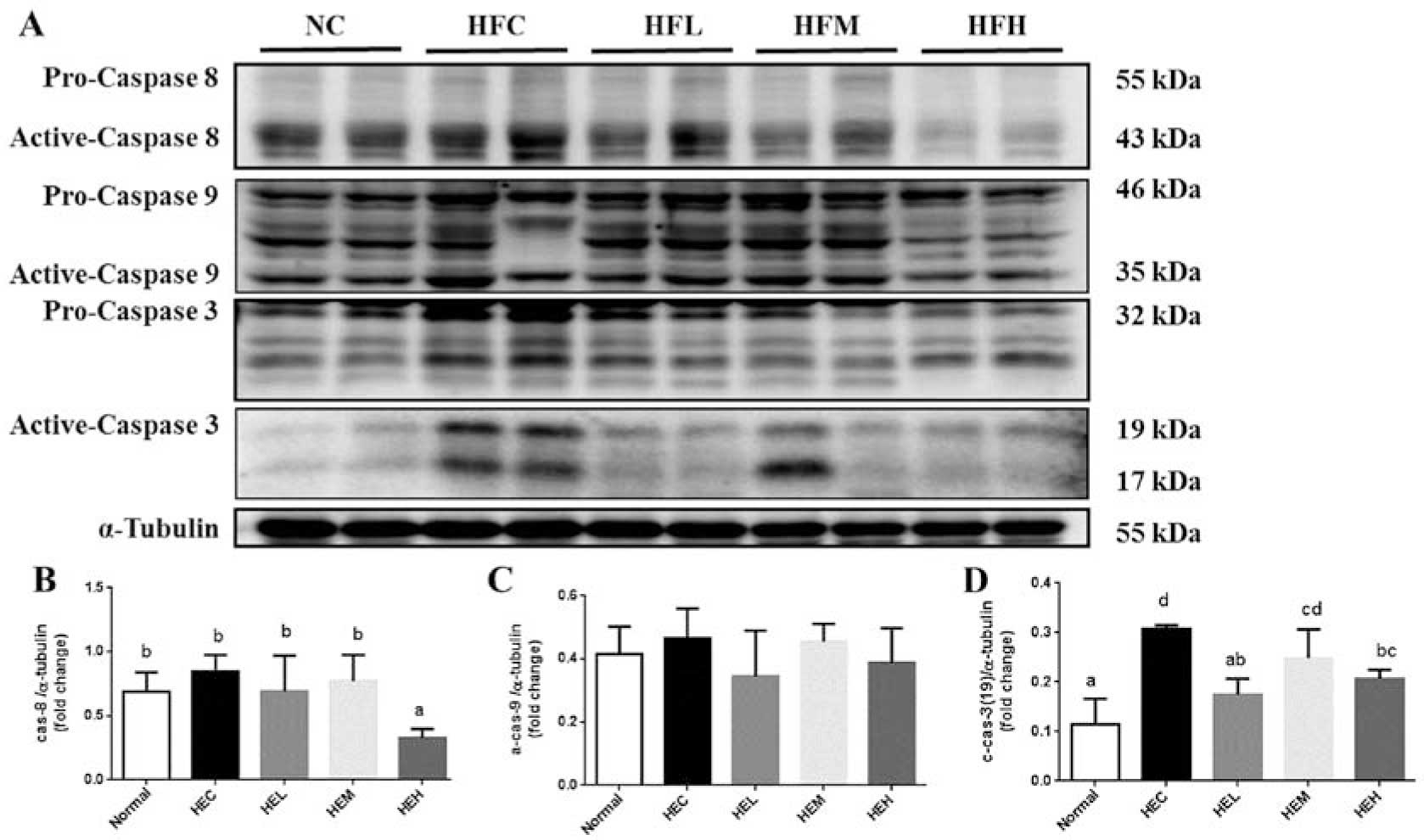 The model of rat lipid metabolism disorder induced by chronic stress accompanying high-fat-diet