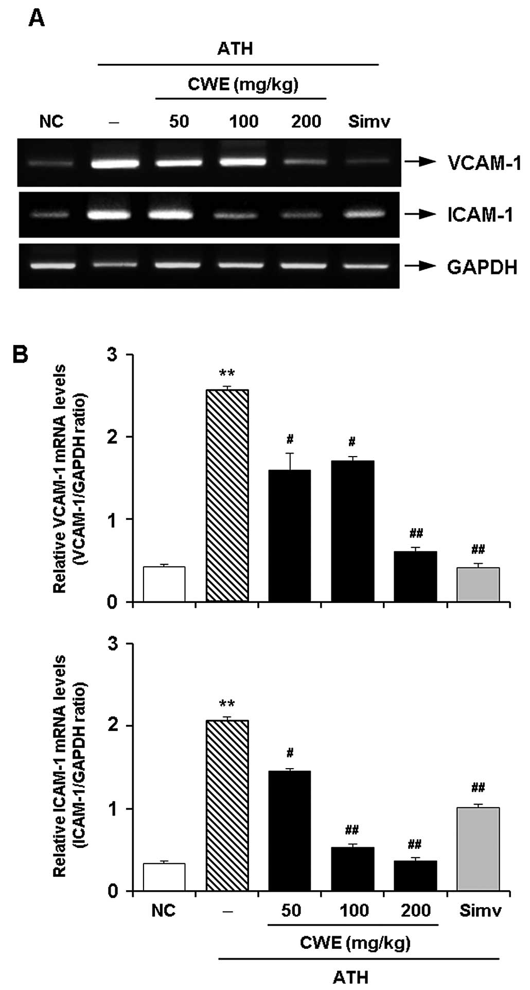 Effect of ethanol extract of Cynanchum wilfordii CWE on the aortic expression of cell adhesion molecules in mice fed an atherogenic ATH t for 12
