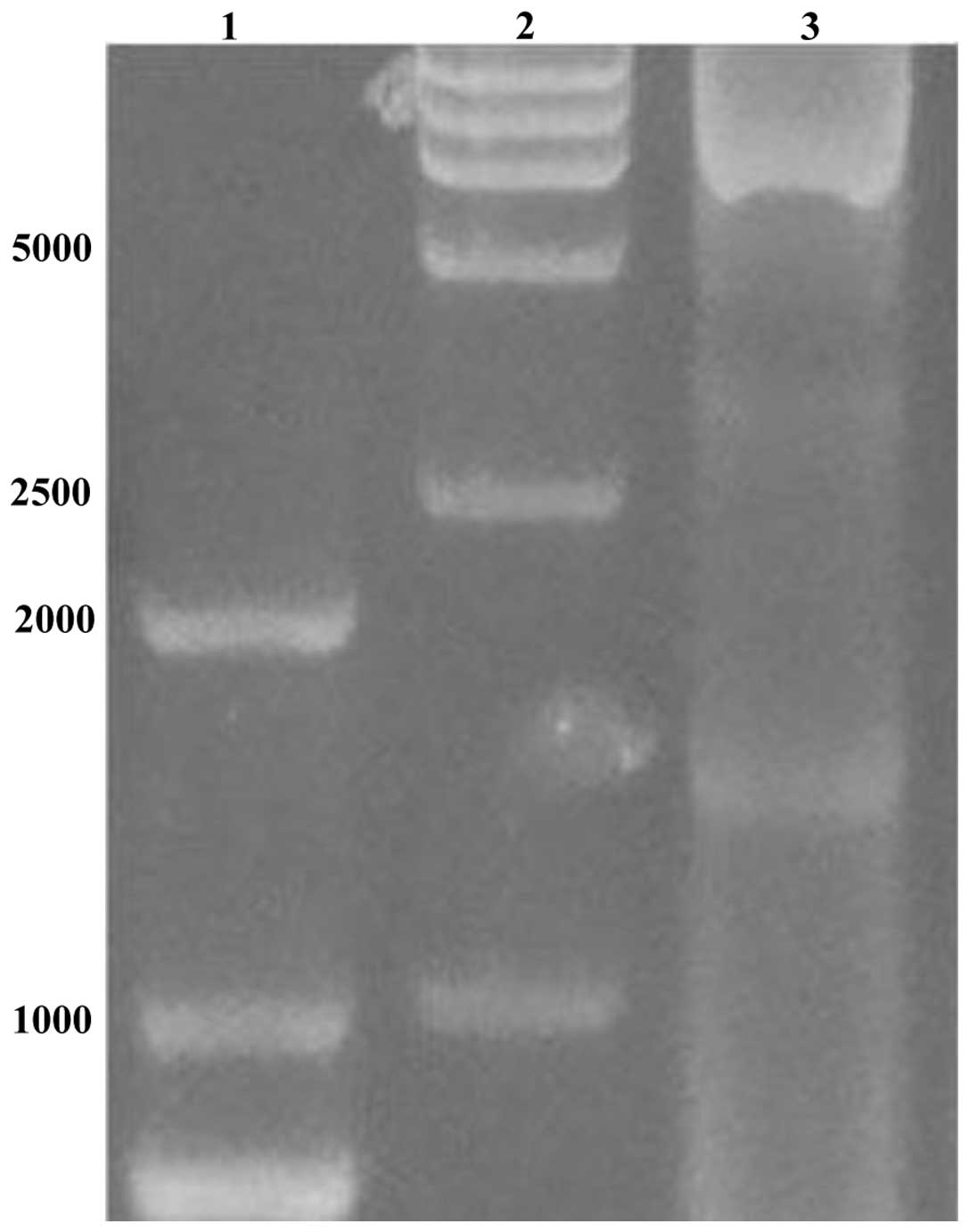 Production of DUSP1 protein using the baculovirus insect