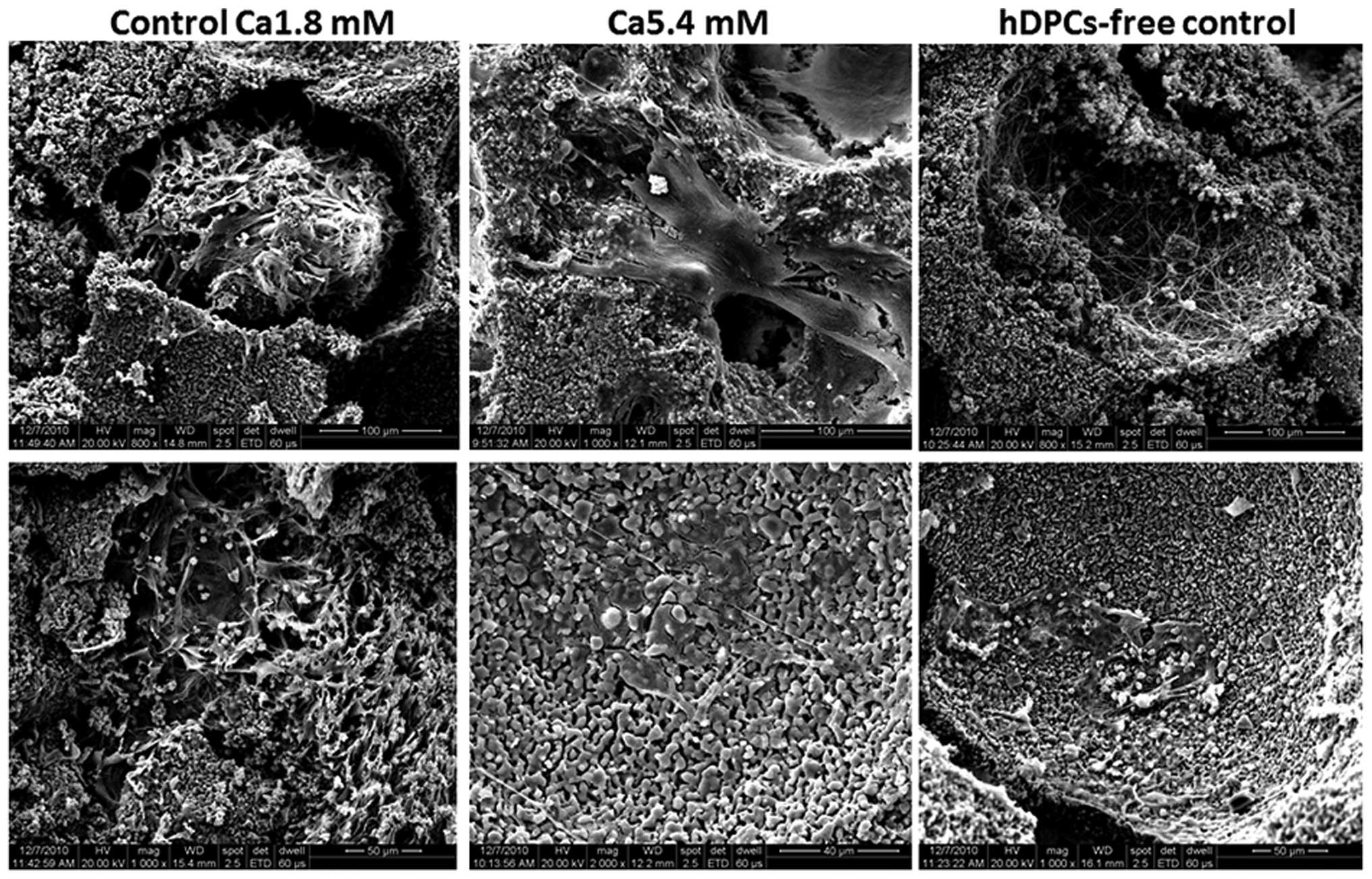 Short Term Effects Of Calcium Ions On The Apoptosis And
