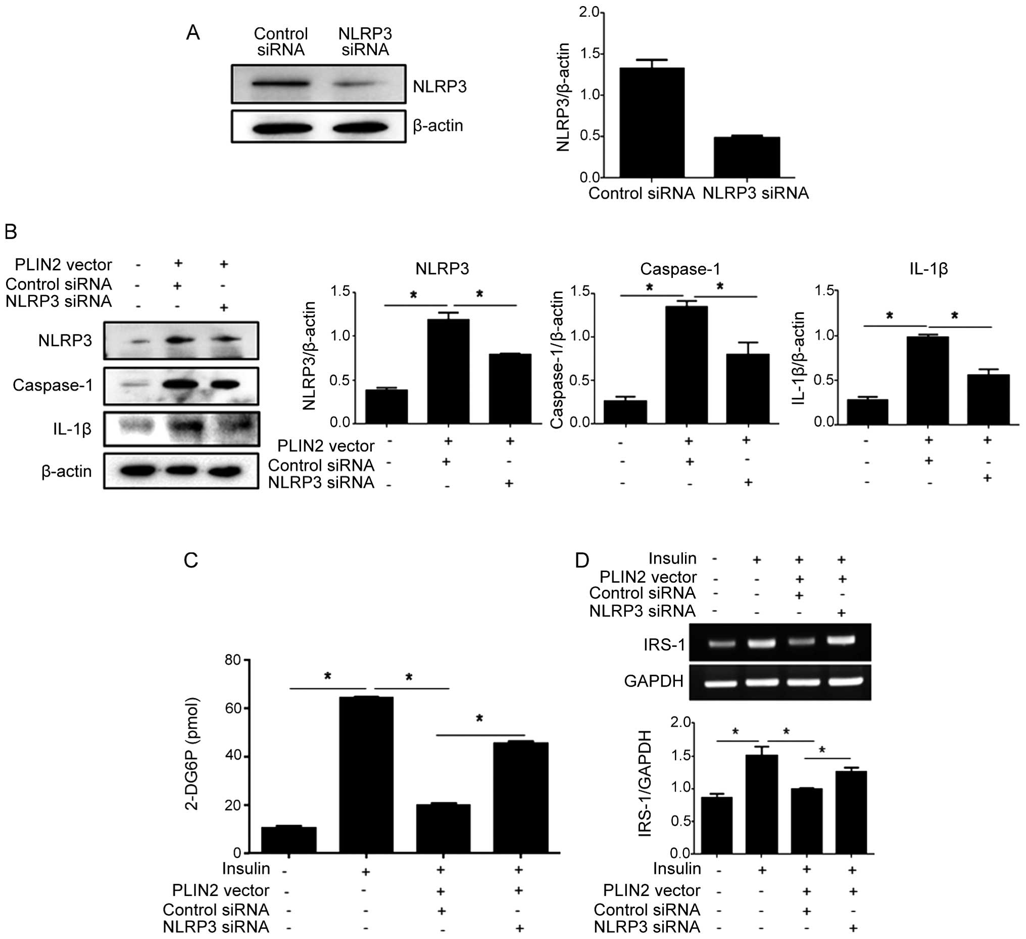 Plin2 inhibits insulin induced glucose uptake in myoblasts through nucleotide binding domain leucine rich repeat containing protein 3 nlrp3 silencing inhibits perilipin 2 plin2 induced insulin resistance ccuart Image collections