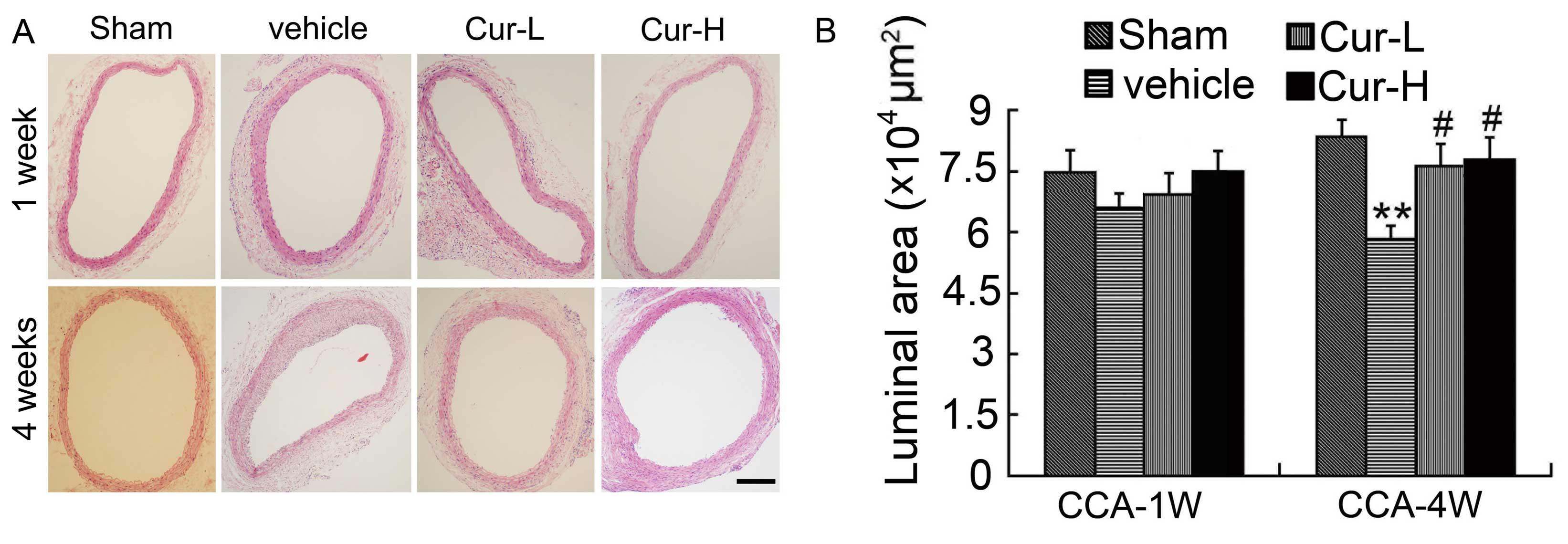 Curcumin accelerates reendothelialization and ameliorates intimal