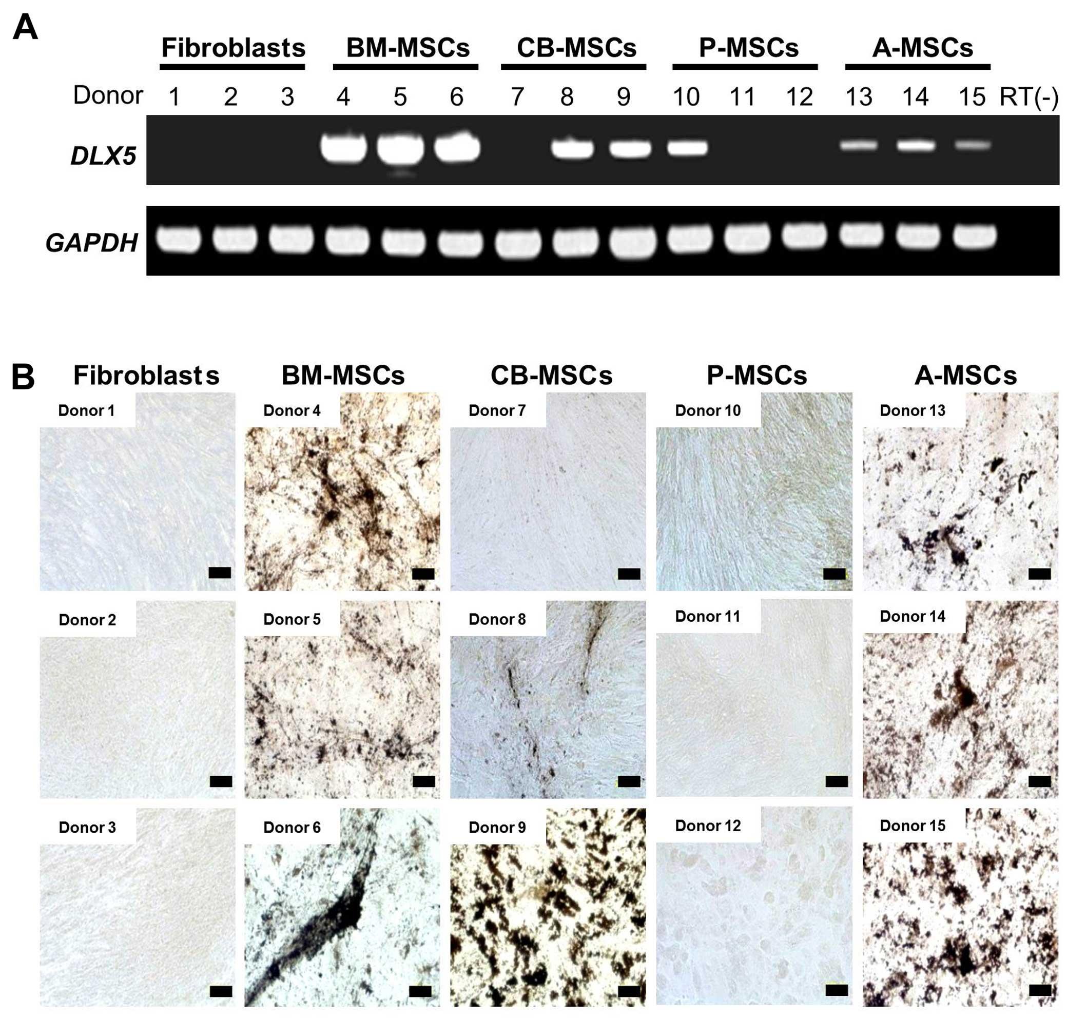 Comparison of molecular profiles of human mesenchymal stem