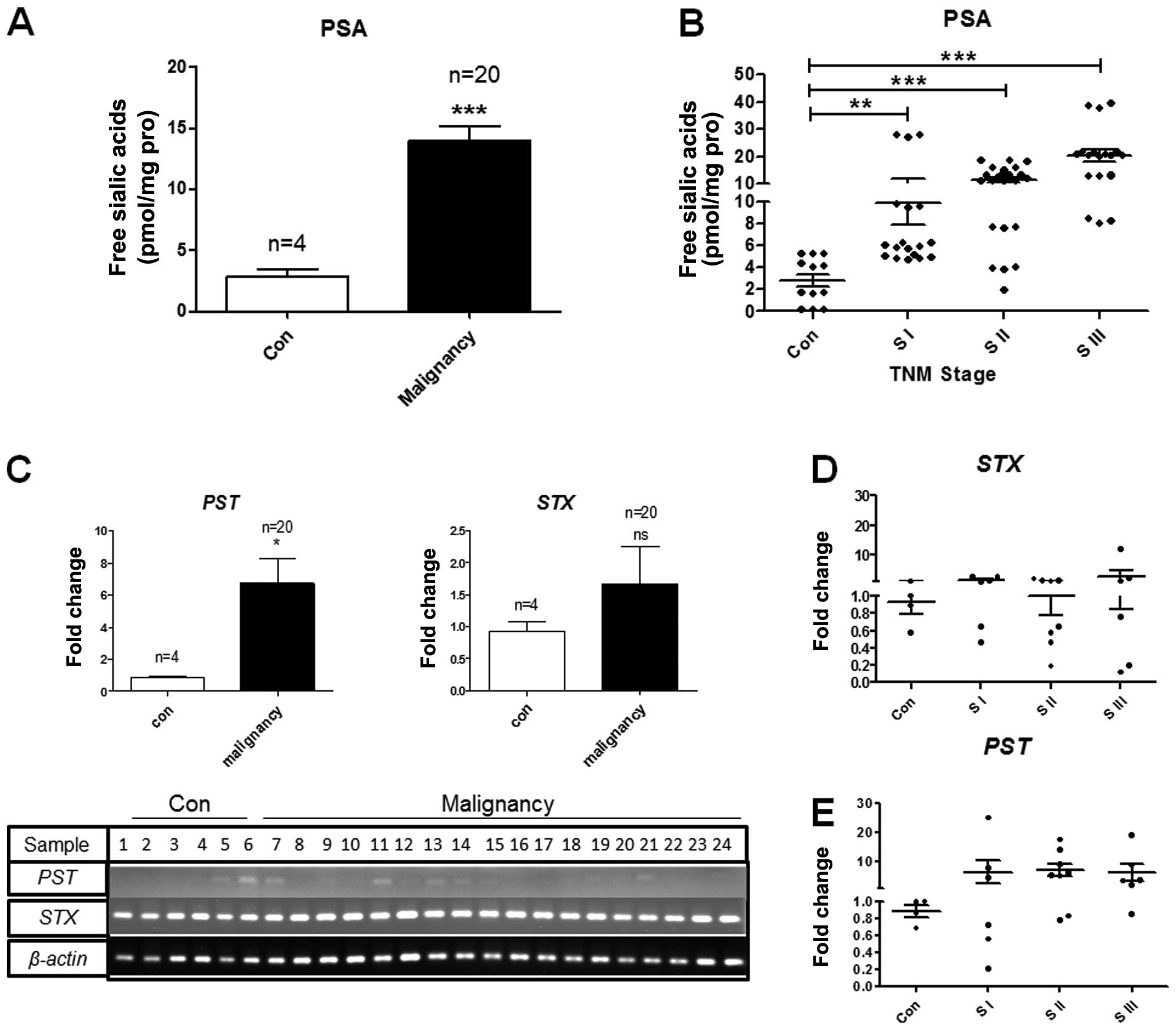 Enhanced Expression Of Polysialic Acid Correlates With Malignant 1994 Eagle Summit Wiring Diagram Figure 7 Psa And Polysialyltransferase In Human Breast Cancer Bc Tissues A B Patients