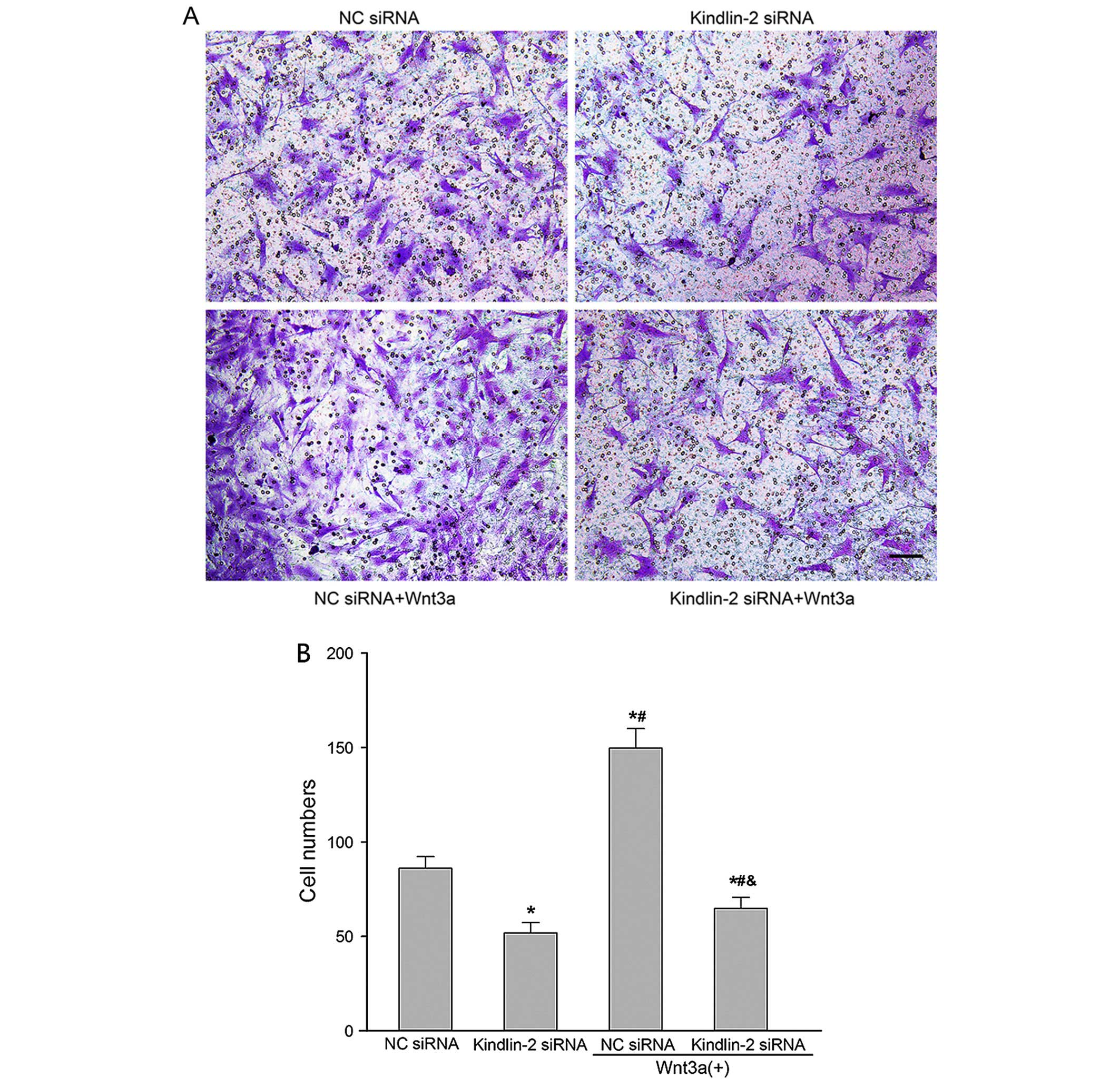 Kindlin 2 Sirna Inhibits Vascular Smooth Muscle Cell Proliferation