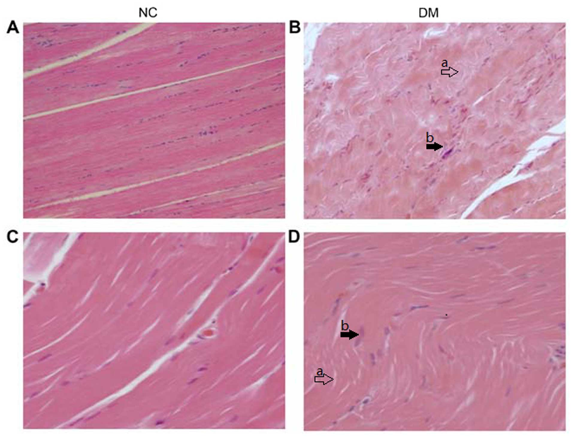 Celastrol Attenuates Oxidative Stress In The Skeletal Muscle Of