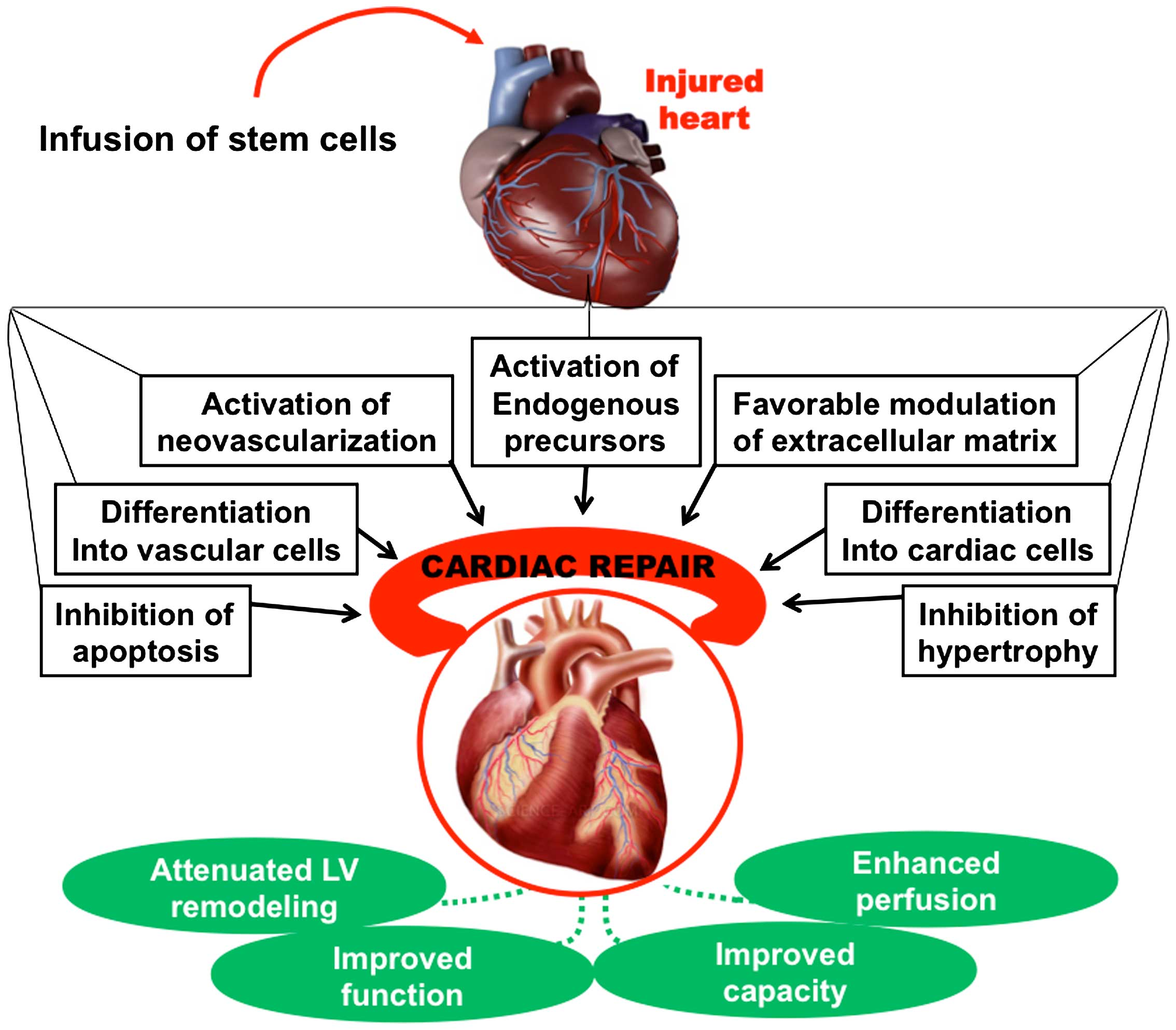 Advances In Stem Cell Therapy For Cardiovascular Disease Review