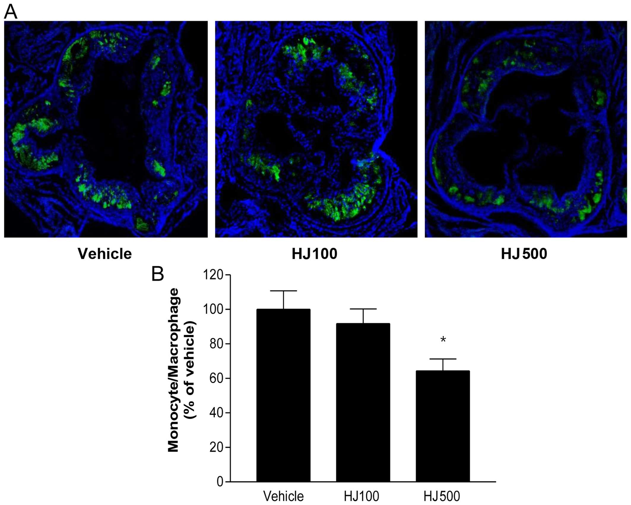 Atherogenic diets exacerbate colitis in mice deficient in glutathione peroxidase