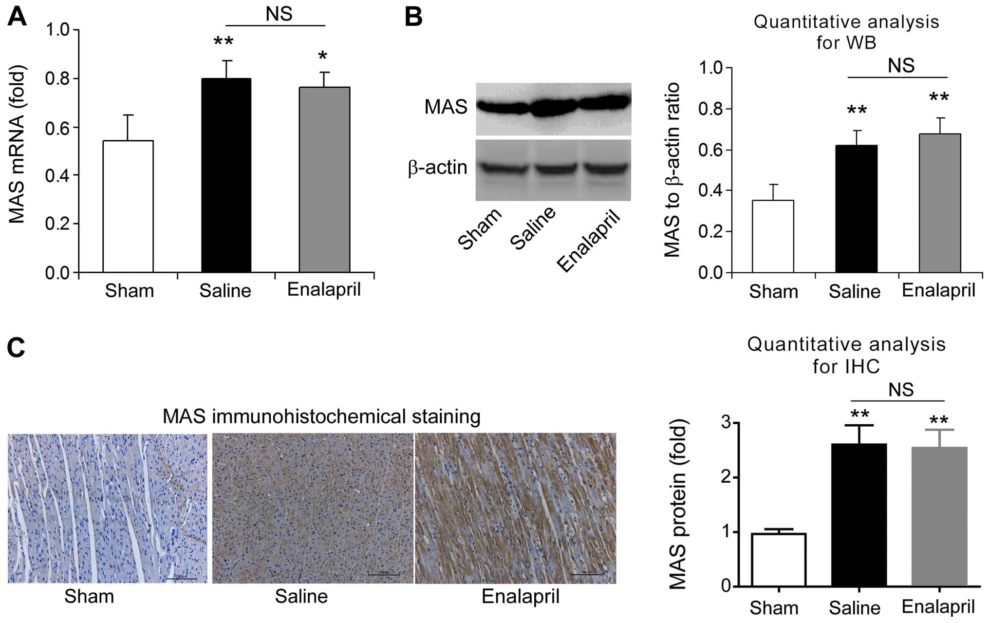 Enalapril protects against myocardial ischemia reperfusion injury in