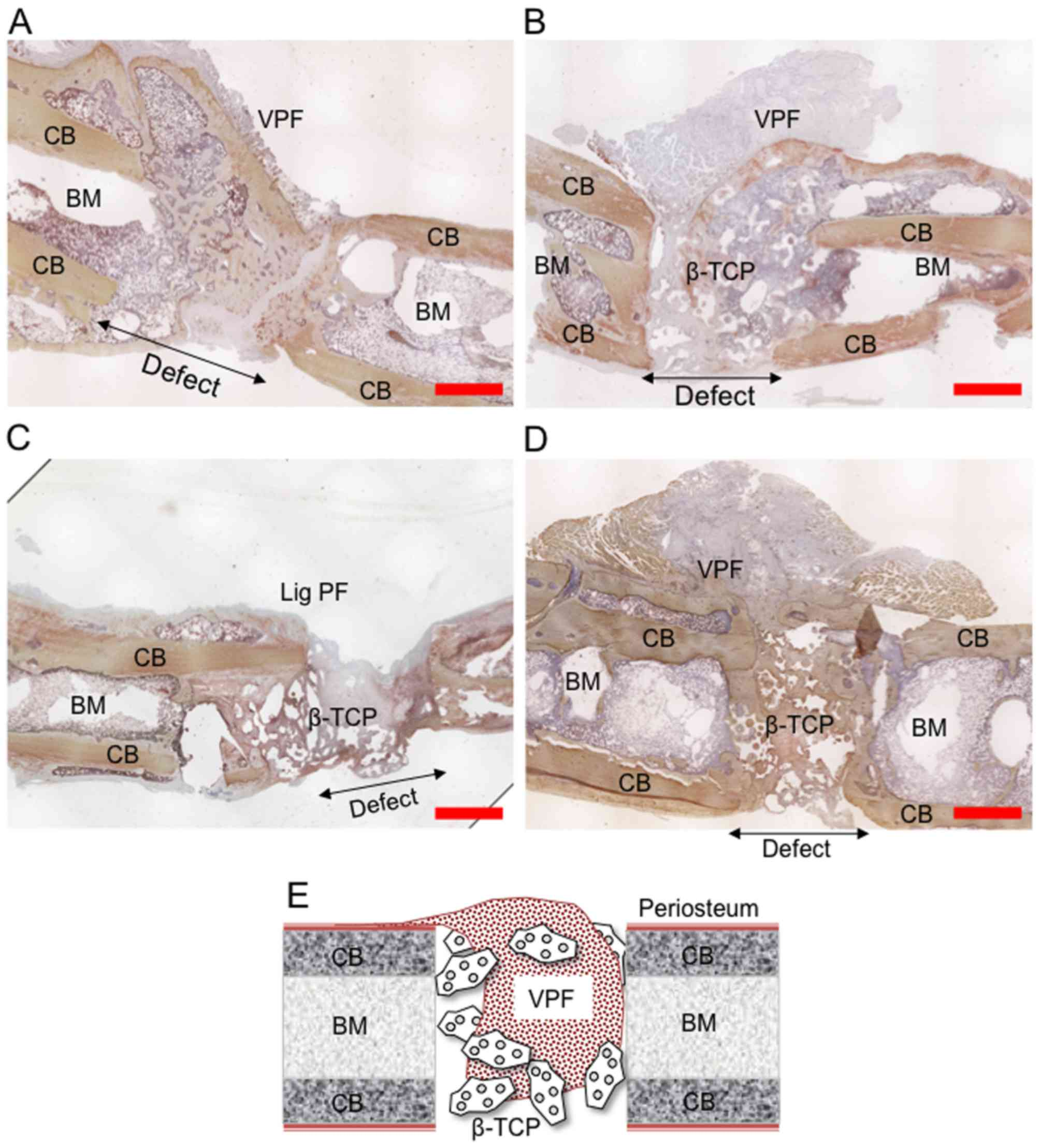 Tissue Engineered Vascularized Periosteal Flap Enriched With Msc
