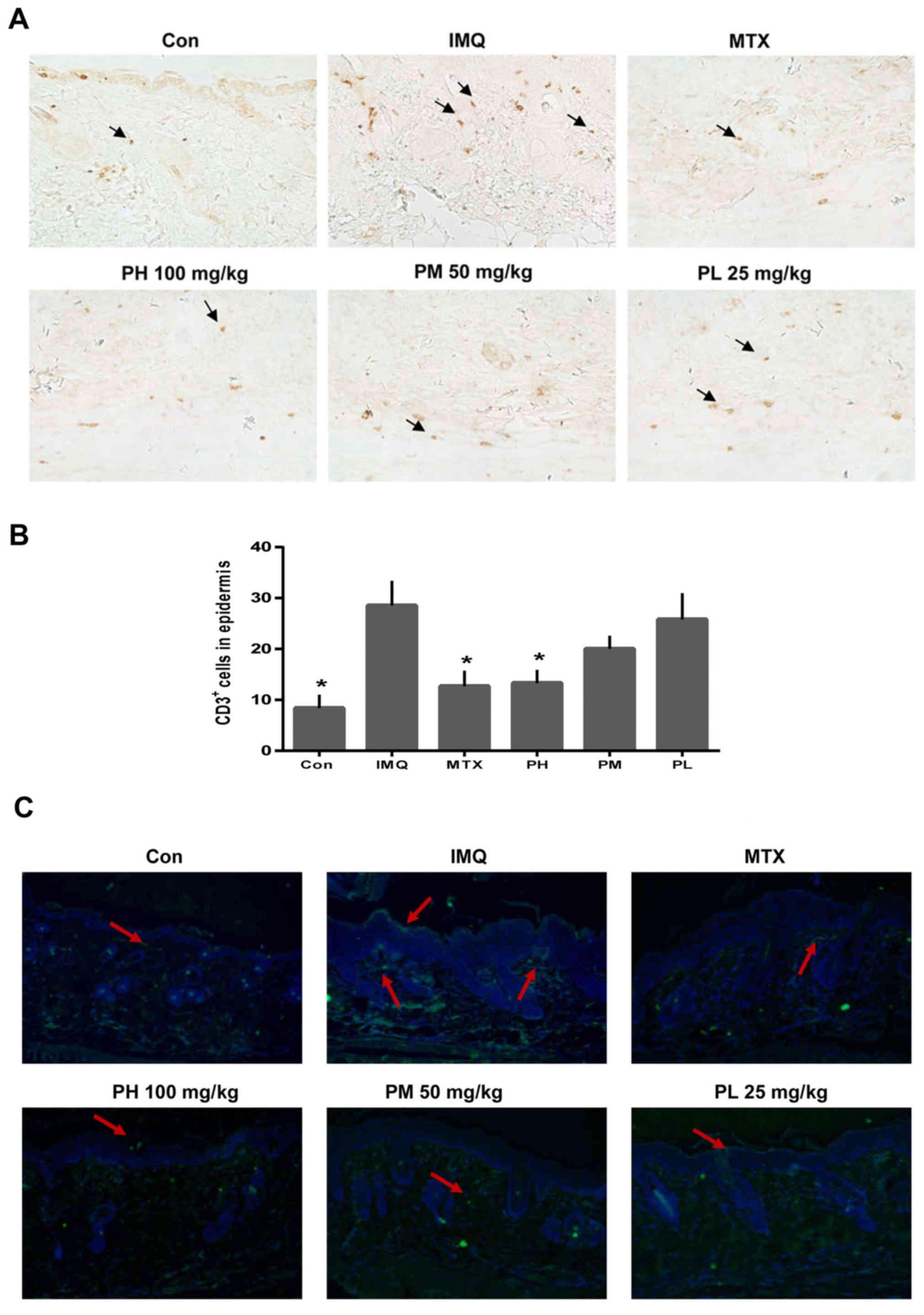 Paeonol ameliorates imiquimod-induced psoriasis-like skin