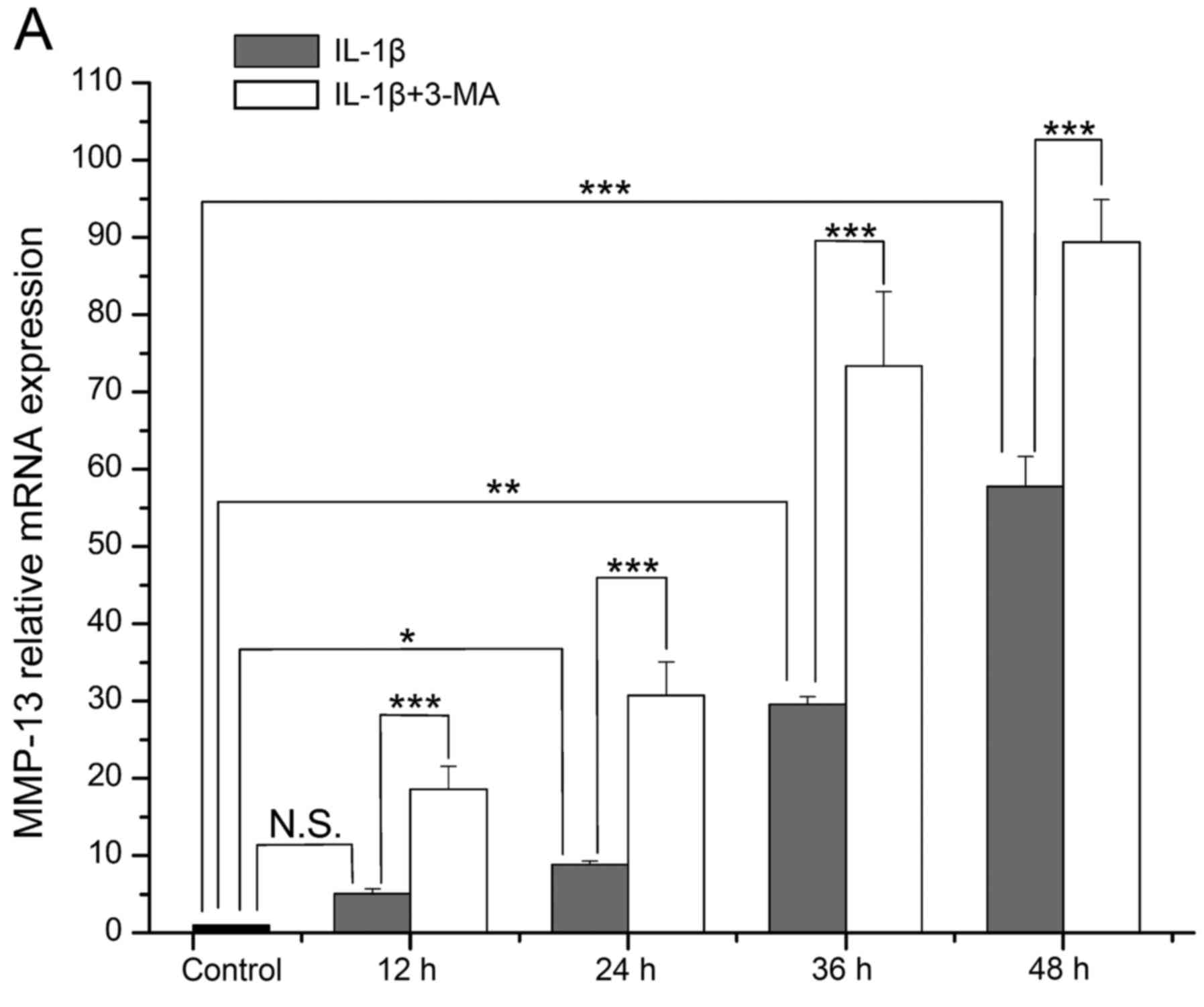 Figure 2 A parison of the mRNA expression level of matrix metalloproteinase MMP 13 in interleukin IL 1β stimulated SW1353 cells between the