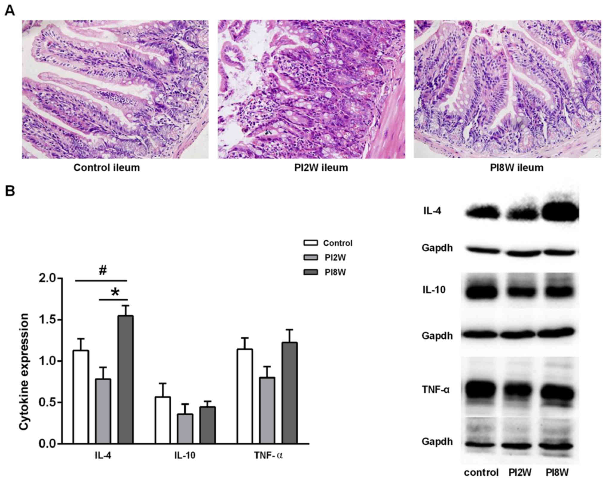 Transfer of CD11c+ lamina propria mononuclear phagocytes