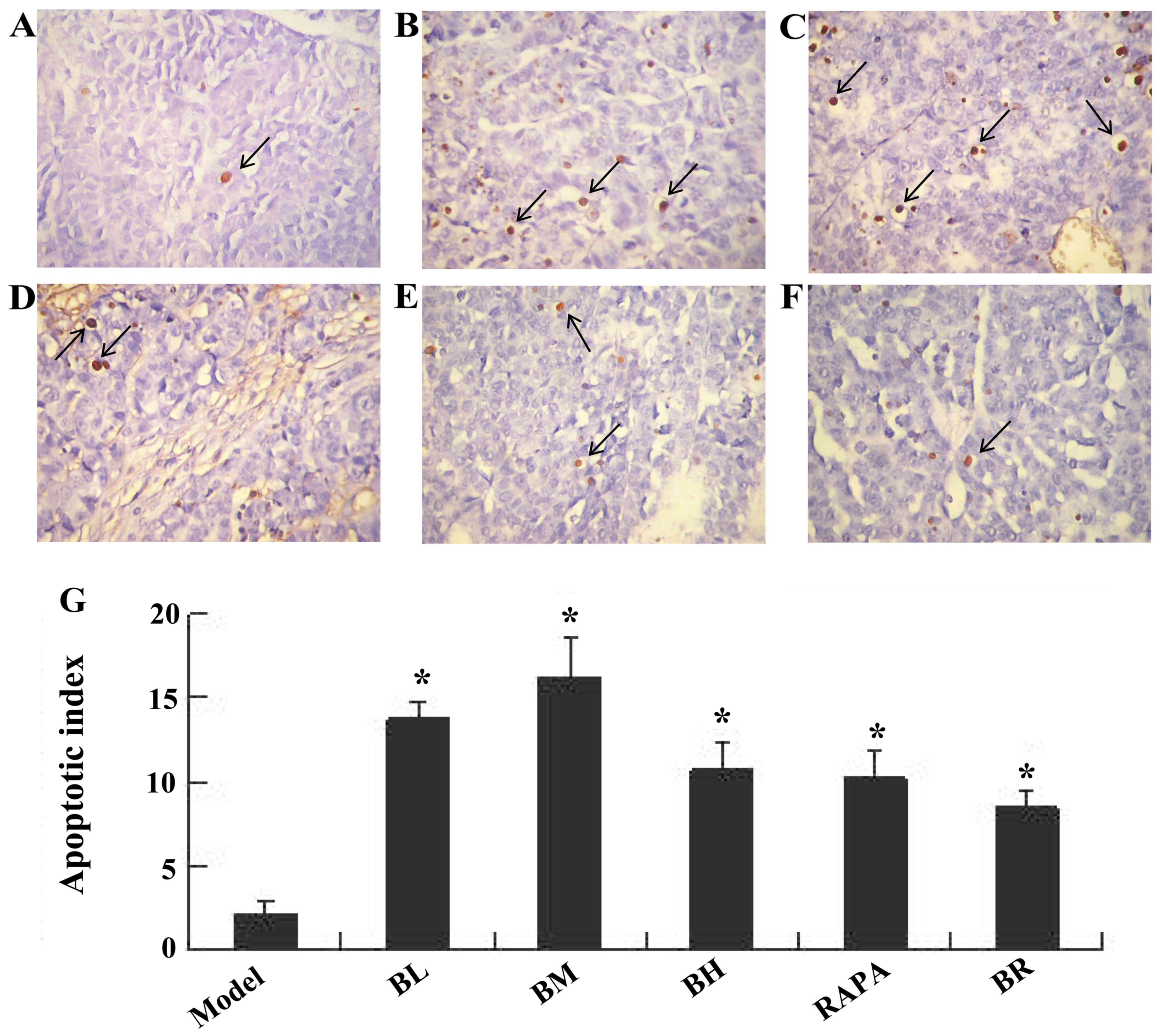 Effects of bufalin on the mTOR/p70S6K pathway and apoptosis in