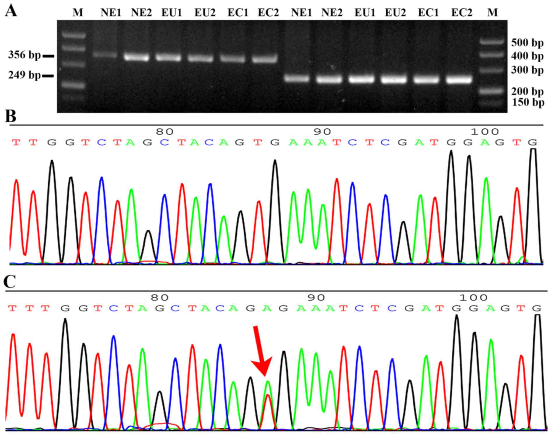 Analysis Of The Oncogene Braf Mutation And The Correlation Of The Expression Of Wild Type Braf And Creb1 In Endometriosis
