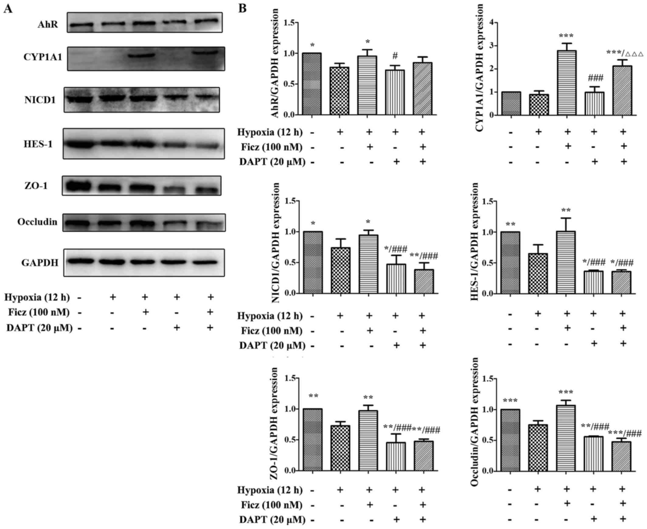 Aryl Hydrocarbon Receptor Activation Maintained The Intestinal Different Types Of Shortcircuits Sc As Outlined In Figure 41 Data Are Presented Mean Standard Deviation P005 P001 P0001 Vs Hx Group Ficz