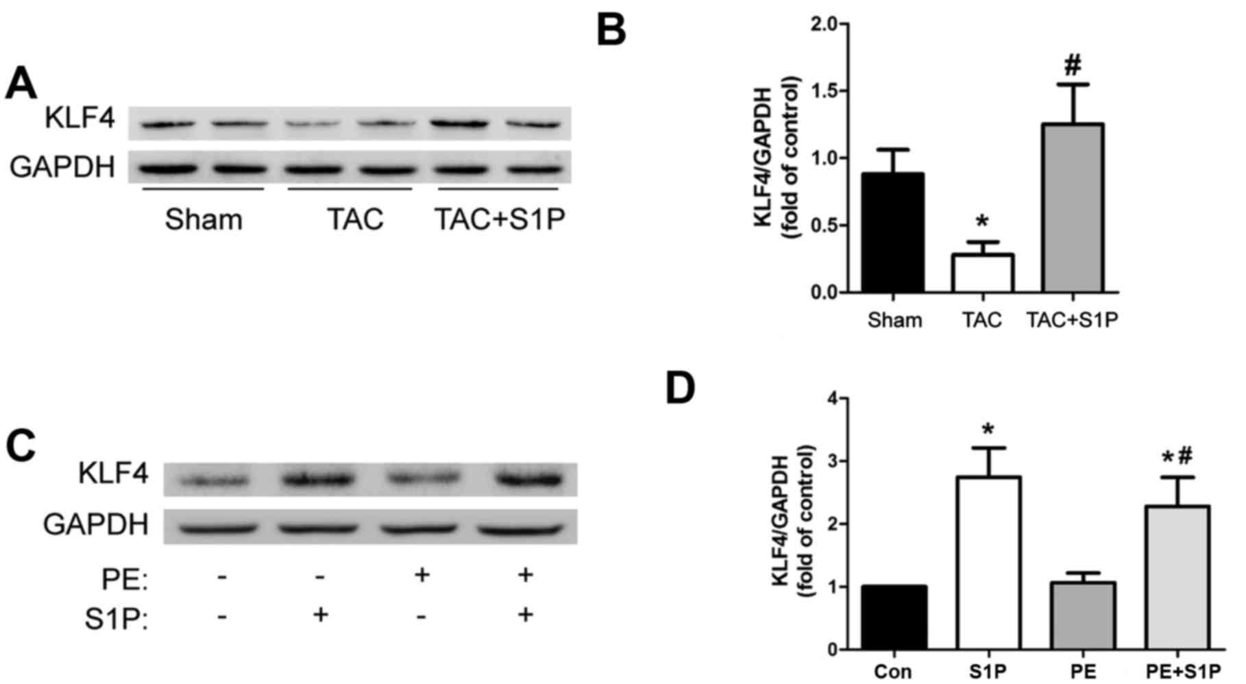 Sphingosine-1-phosphate ameliorates the cardiac hypertrophic