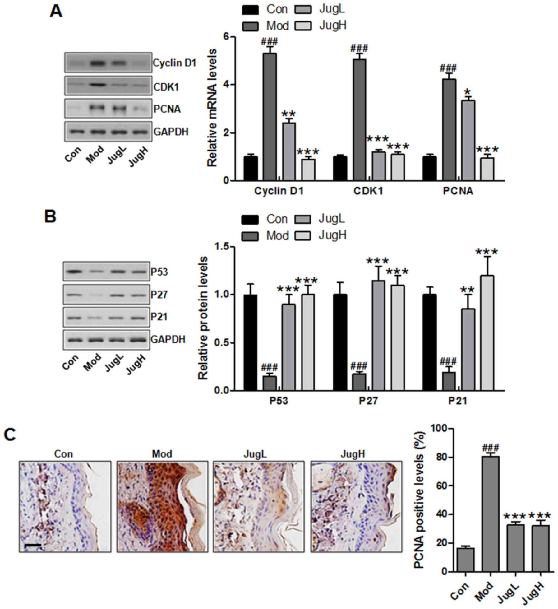 Juglanin ameliorates UVB‑induced skin carcinogenesis via
