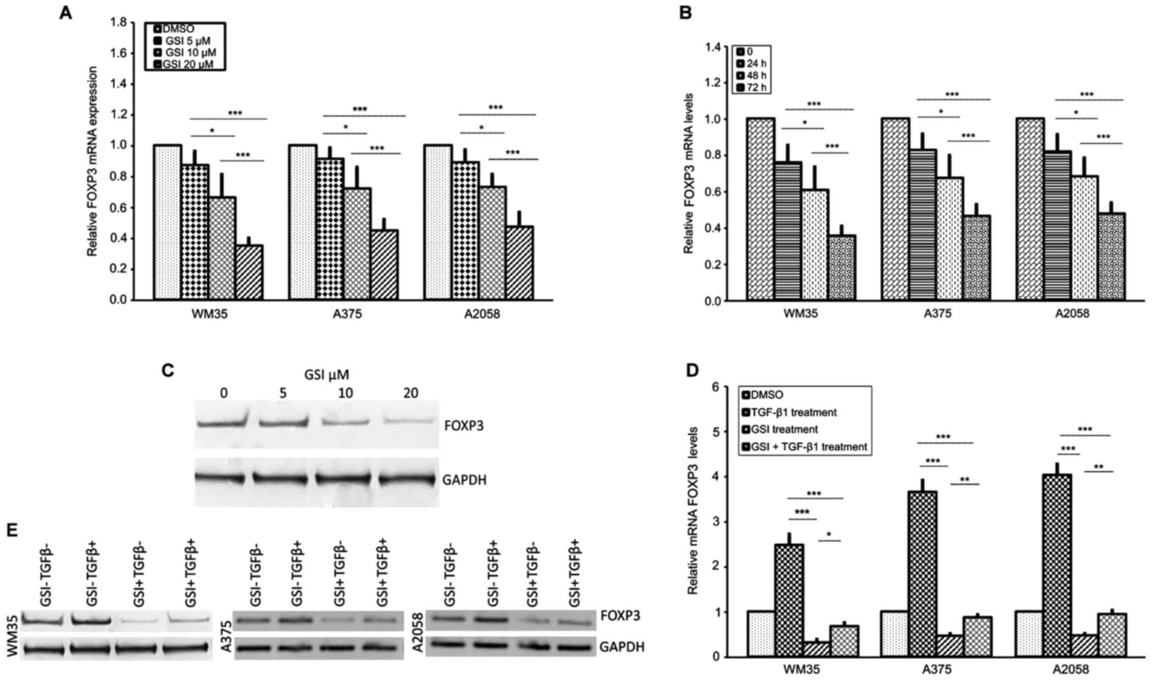 FOXP3 expression is modulated by TGF‑β1/NOTCH1 pathway in